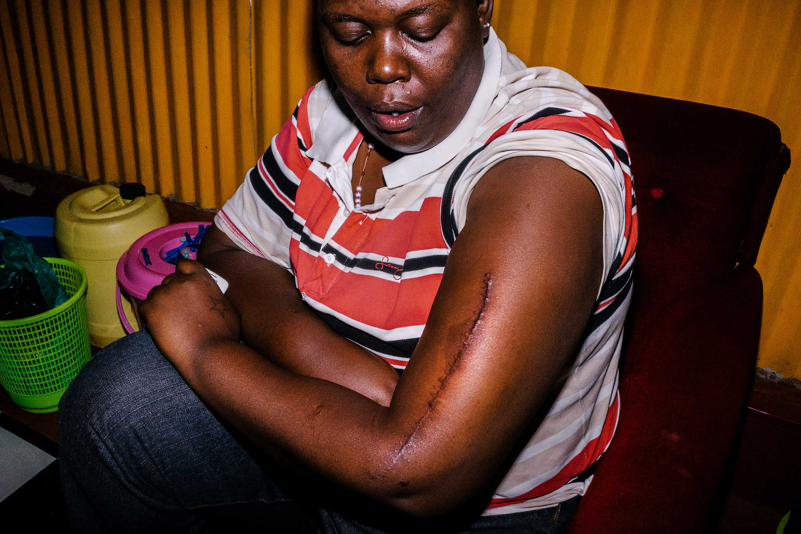 Cynthia displays a scar she says she received at the hands of Burundian police when they attacked her because of her sexuality.