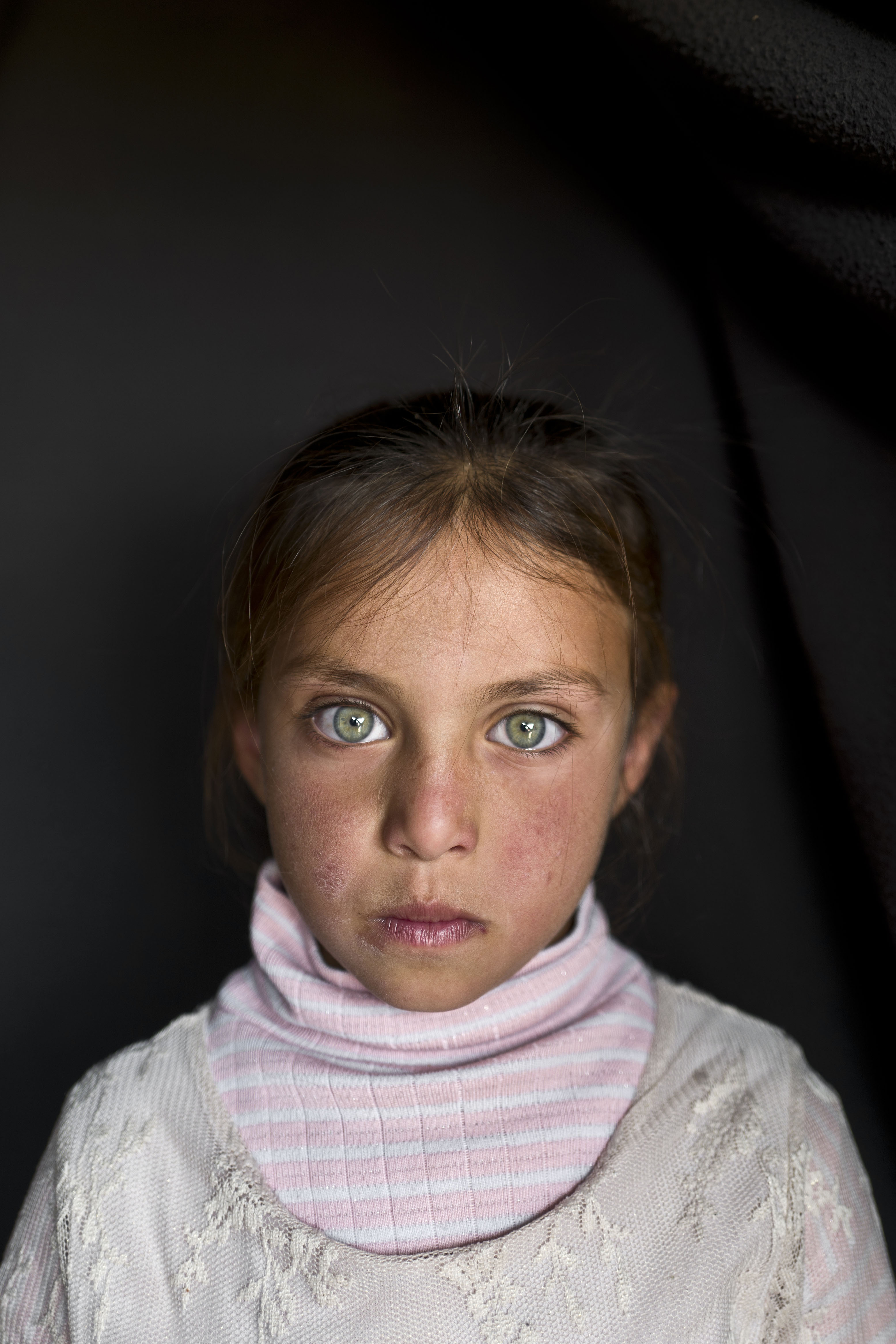 <strong>Aya Bandar</strong>, 6, from Hama, in March 2016.