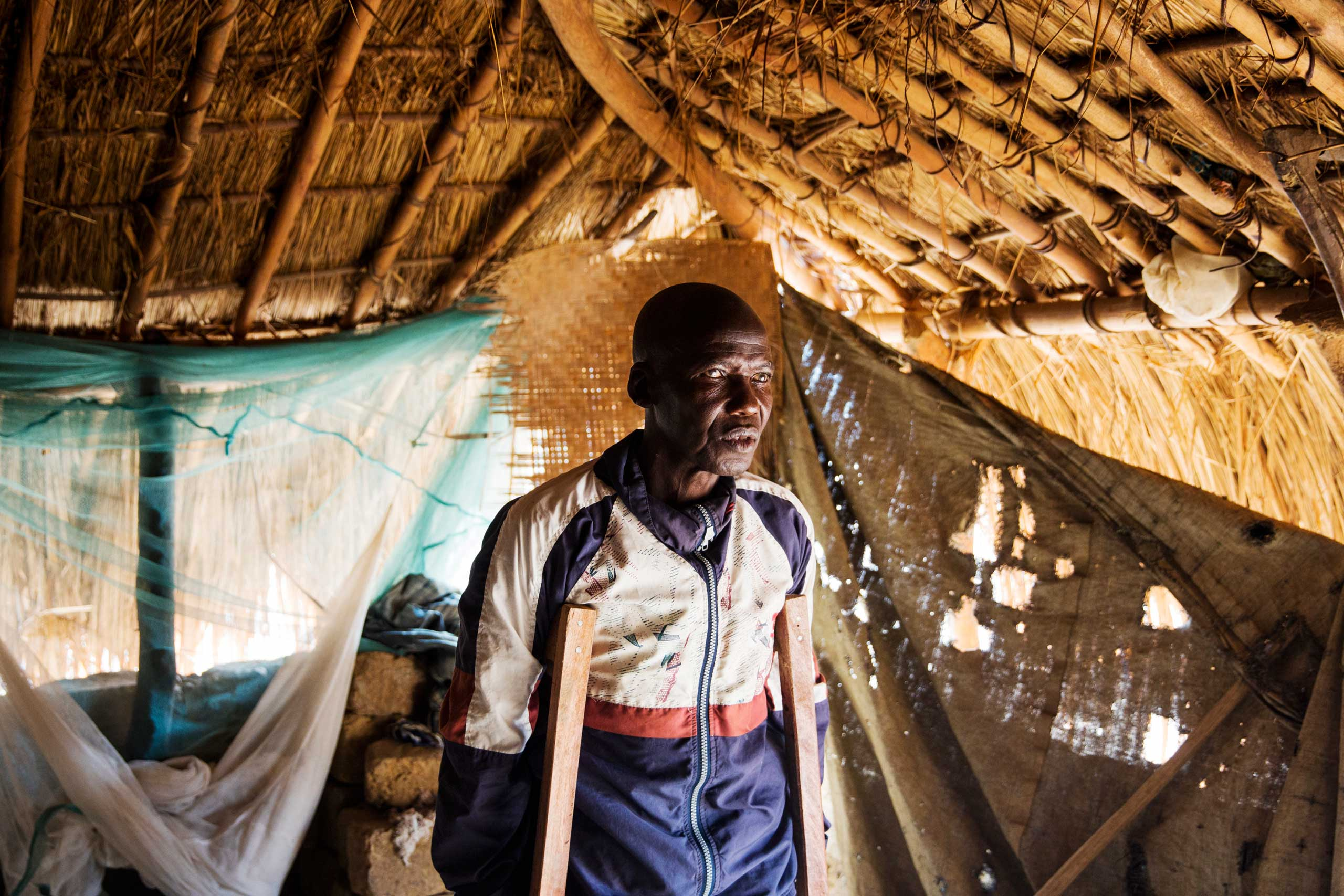 A blind fisherman in Bankoudou, a village along the Oubangui river. Many people, especially in fisherman families, suffer from blindness caused by a parasite carried by flies.