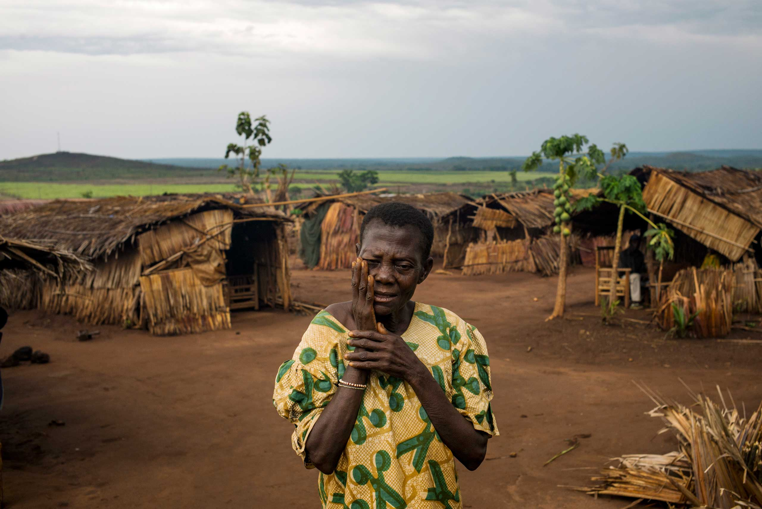 a woman complains about eyes healthcare in Ngakobo IDP camp where 16 000 christian live. They left their home because of violence between ex Seleka and antibalaka militias.