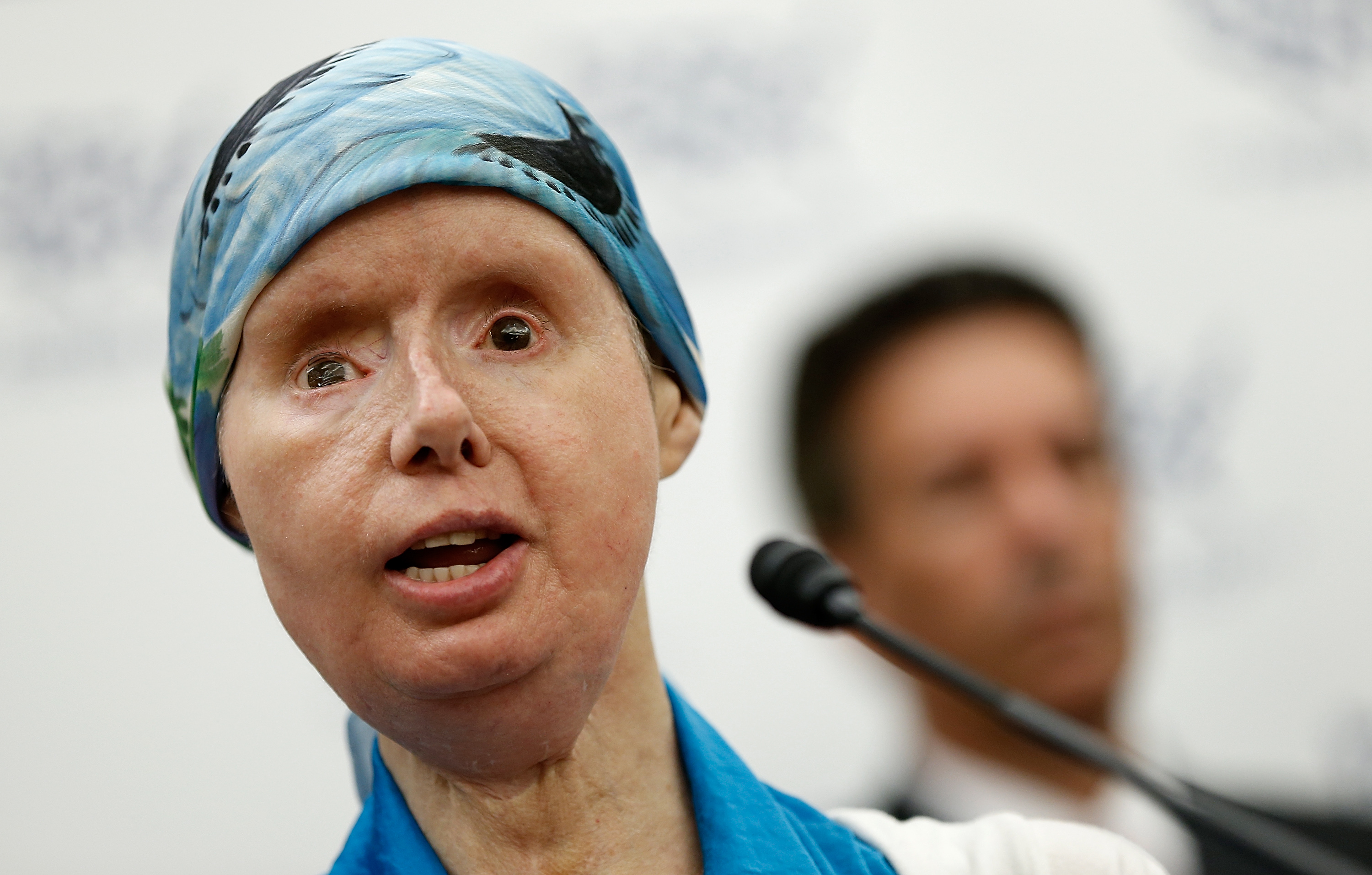 Charla Nash, the victim of a mauling by a pet chimp in Connecticut in 2009 and who underwent a face transplant, speaks at a press conference July 10, 2014 on Capitol Hill in Washington, DC.