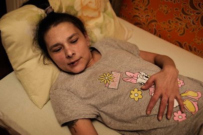 Oxana has been lying in bed for the past one year and half with her back permanently damaged. The high use of Krokodil damaged her mussels and her spine. Despite several surgeries she can't seat or stand. Her condition has also been worsened by her father's beatings who couldn't cope with her constant request for money to buy drug.