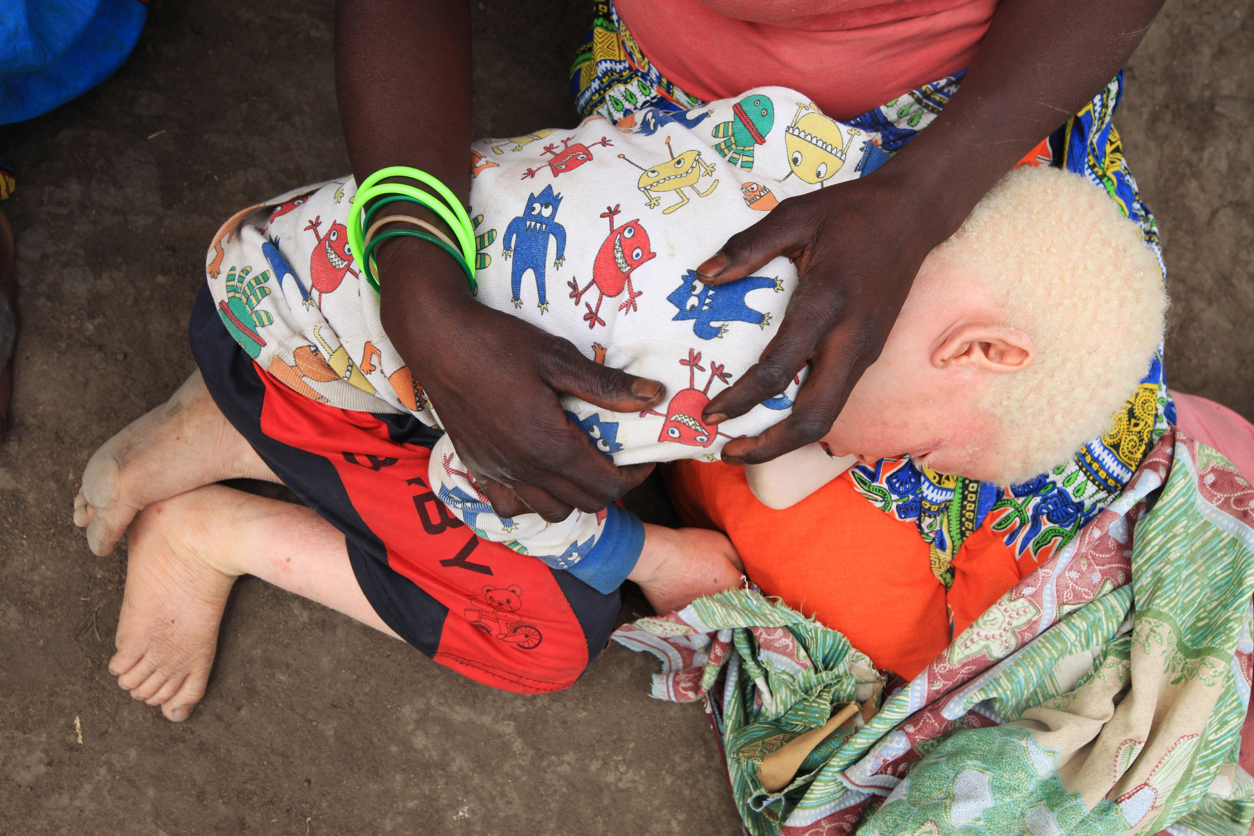 Edna Cedrick, 26, holds her surviving albino son after his twin brother who had albinism was snatched from her arms,  in Machinga north east of Blantyre, Malawi, May, 24, 2016.