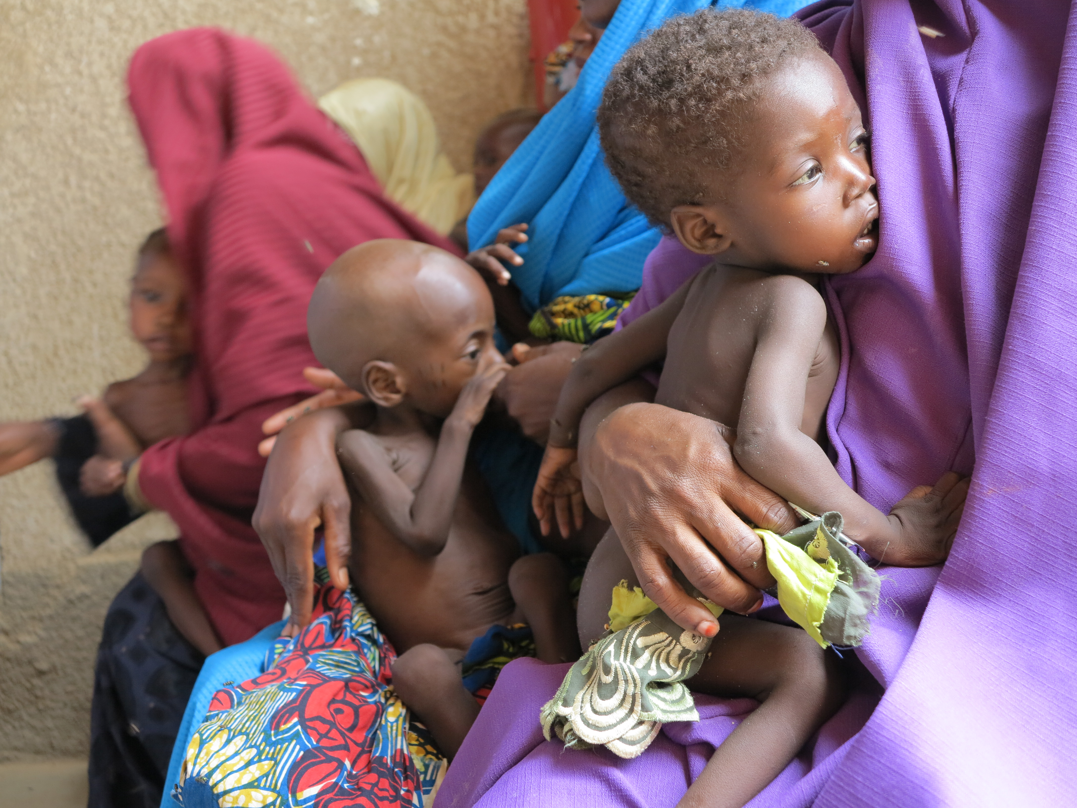 Yahya Abdumalik, a 14-month-old severely malnourished child held by his mother, Zayha Arouna, at a clinic in Madarounfa, a village in Niger near the Nigerian border on June 14, 2012