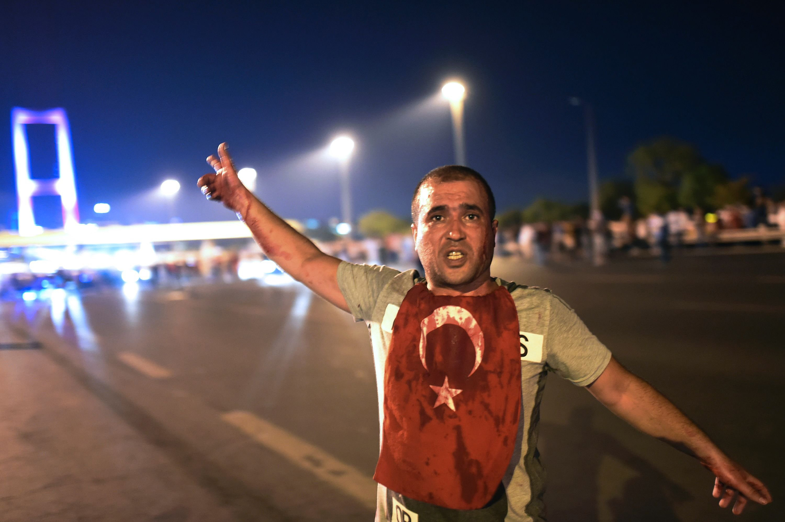 A man covered with blood points at the Bosphorus Bridge as the Turkish military clashes with people at the entrance to the bridge in Istanbul on July 16, 2016.