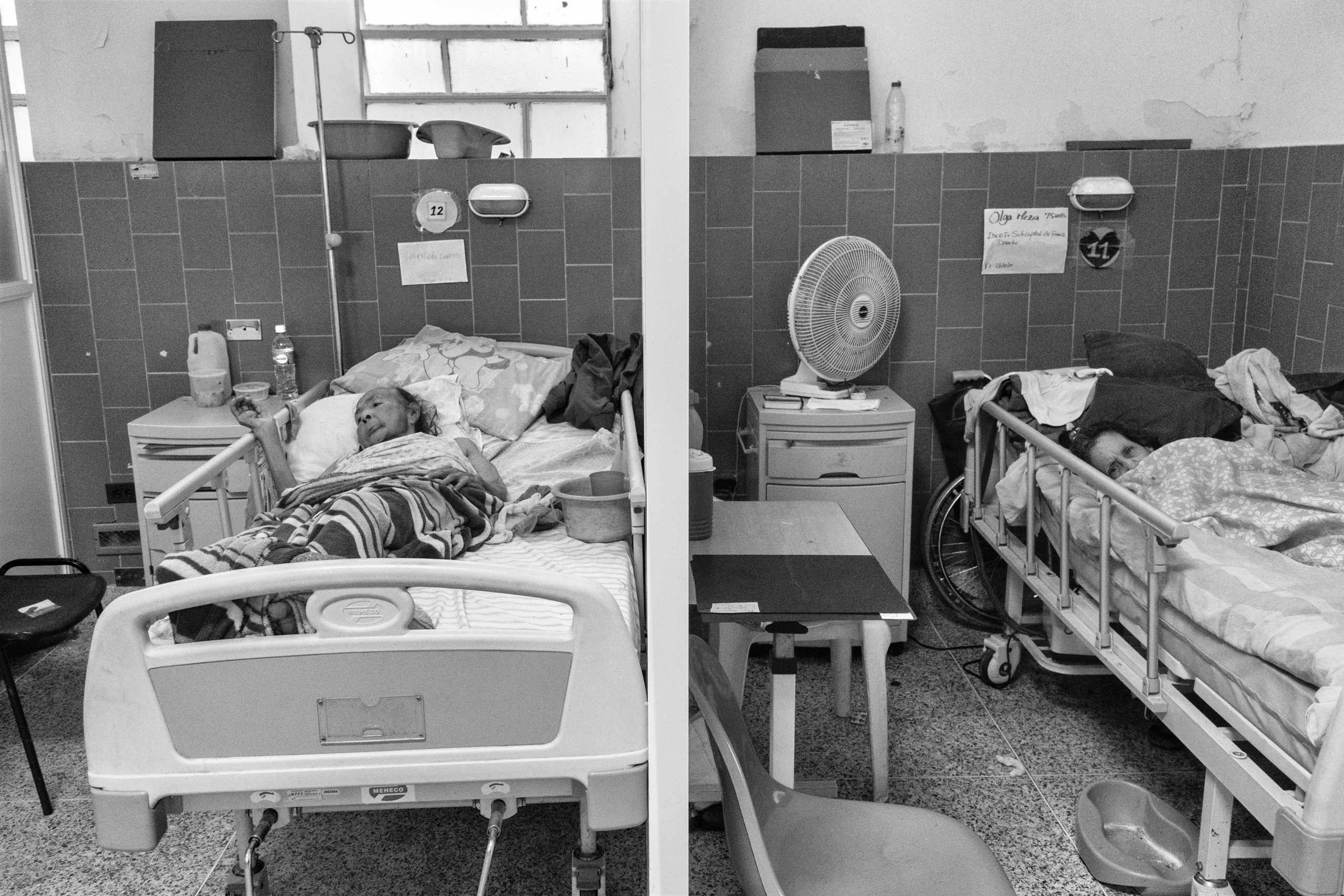Two patients in the Vargas Hospital in Caracas, Venezuela.  Because of shortages of food and medical supplies,  patients are not receiving necessary care, June 2016.