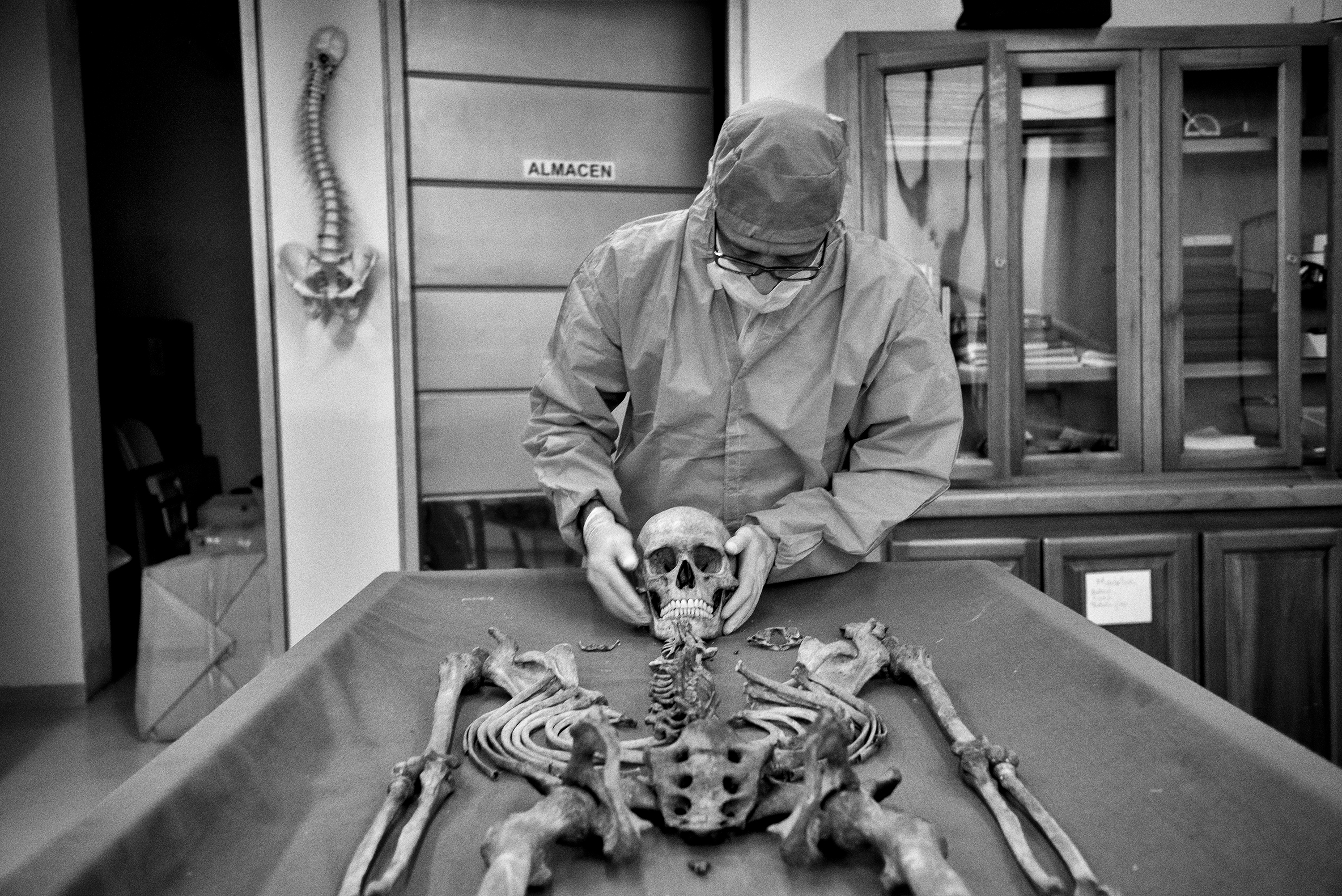 A Forensic investigator with the Colombian Prosecutor's office examines an unidentified corpse (NN). The human identification group from Antioquia, Colombia is comprised of four anthropologists, three dentists, two doctors, one assistant and a photographer. Since it was established, they have done 1325 exhumations of unidentified corpses, of which 653 have been identified and  returned to their families. There are more than 96,000 people missing in Colombia, Antioquia, Medellin,March 2015.