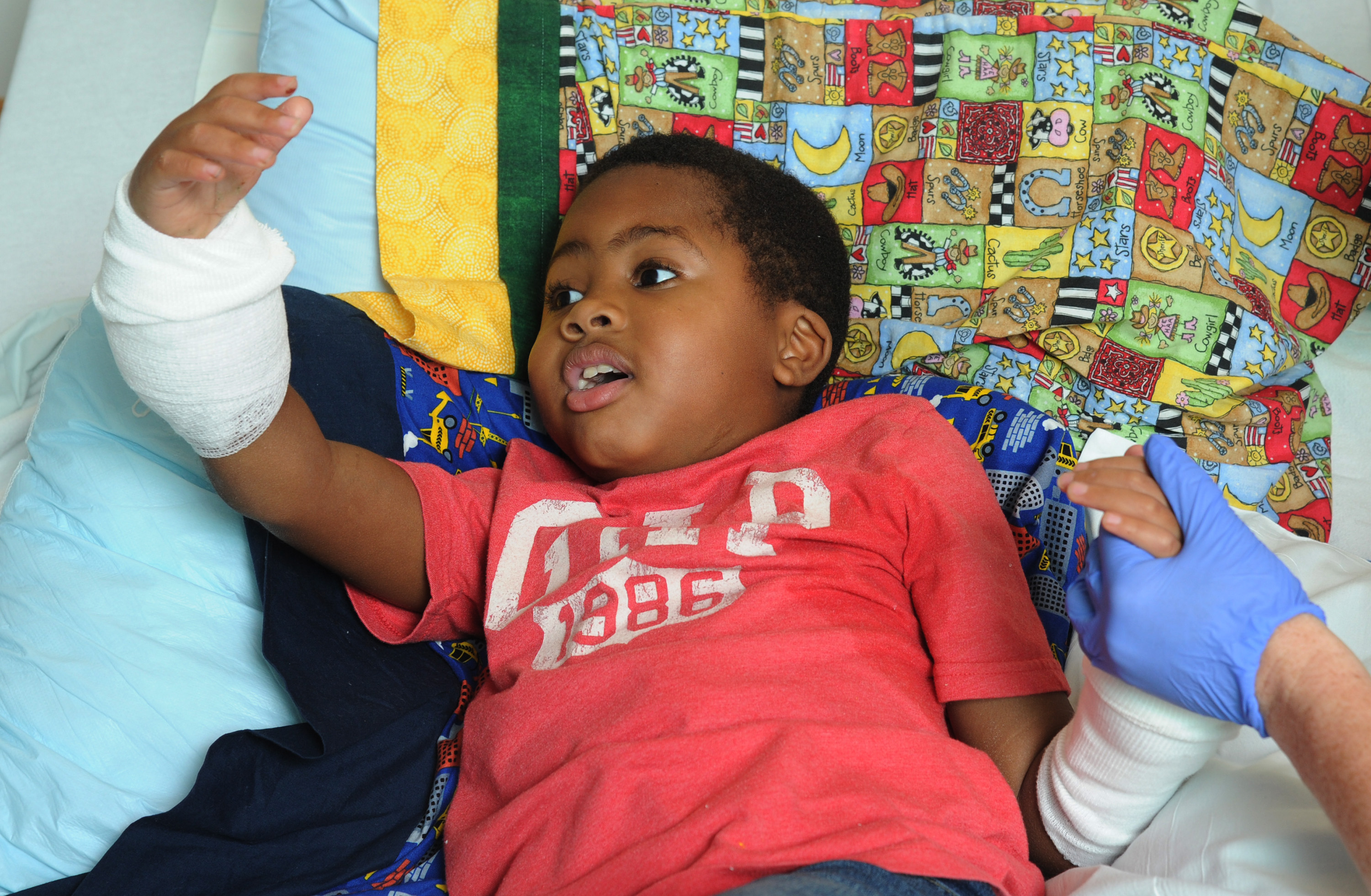 Zion Harvey, 8, of Baltimore, seems to marvel at his new right hand while in his hospital bed on July 27, 2015. Zion lost his hands and feet to a bacterial disease when he was 2, but had a double hand transplant at Children's Hospital of Philadelphia in early July 2015, the first pediatric double hand transplant. (Clem Murray/Philadelphia Inquirer/TNS via Getty Images)