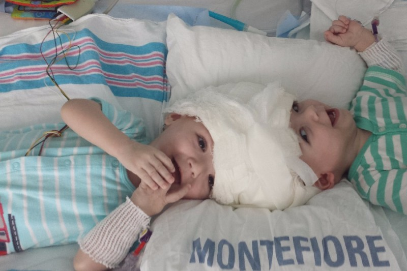 Anias and Jadon McDonald were born conjoined at the head, on Sept. 9, 2015.