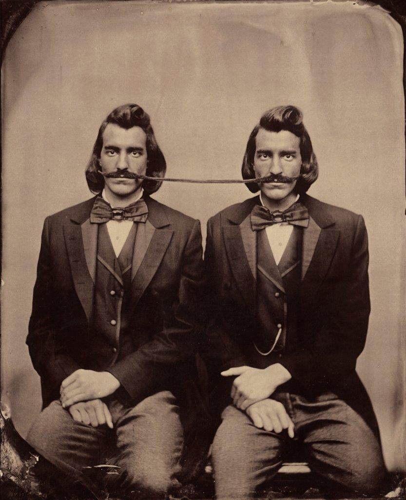 Conjoined Twins,  undated. Albumen print from wetplate negative.