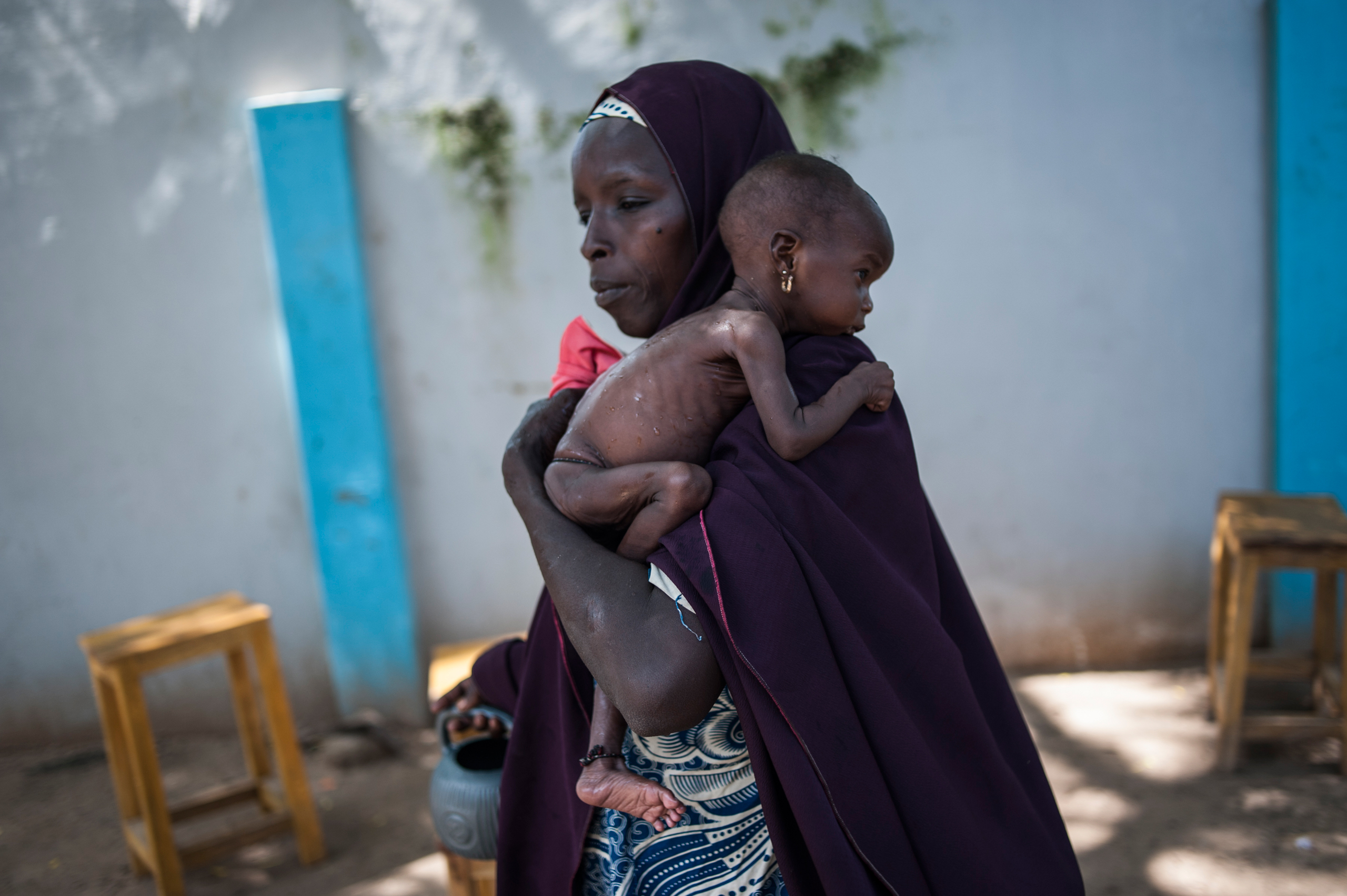 A mother holding her young malnourished baby at a public health facility in the Dalaram district of Maiduguri, Nigeria, on Sept. 15, 2016.