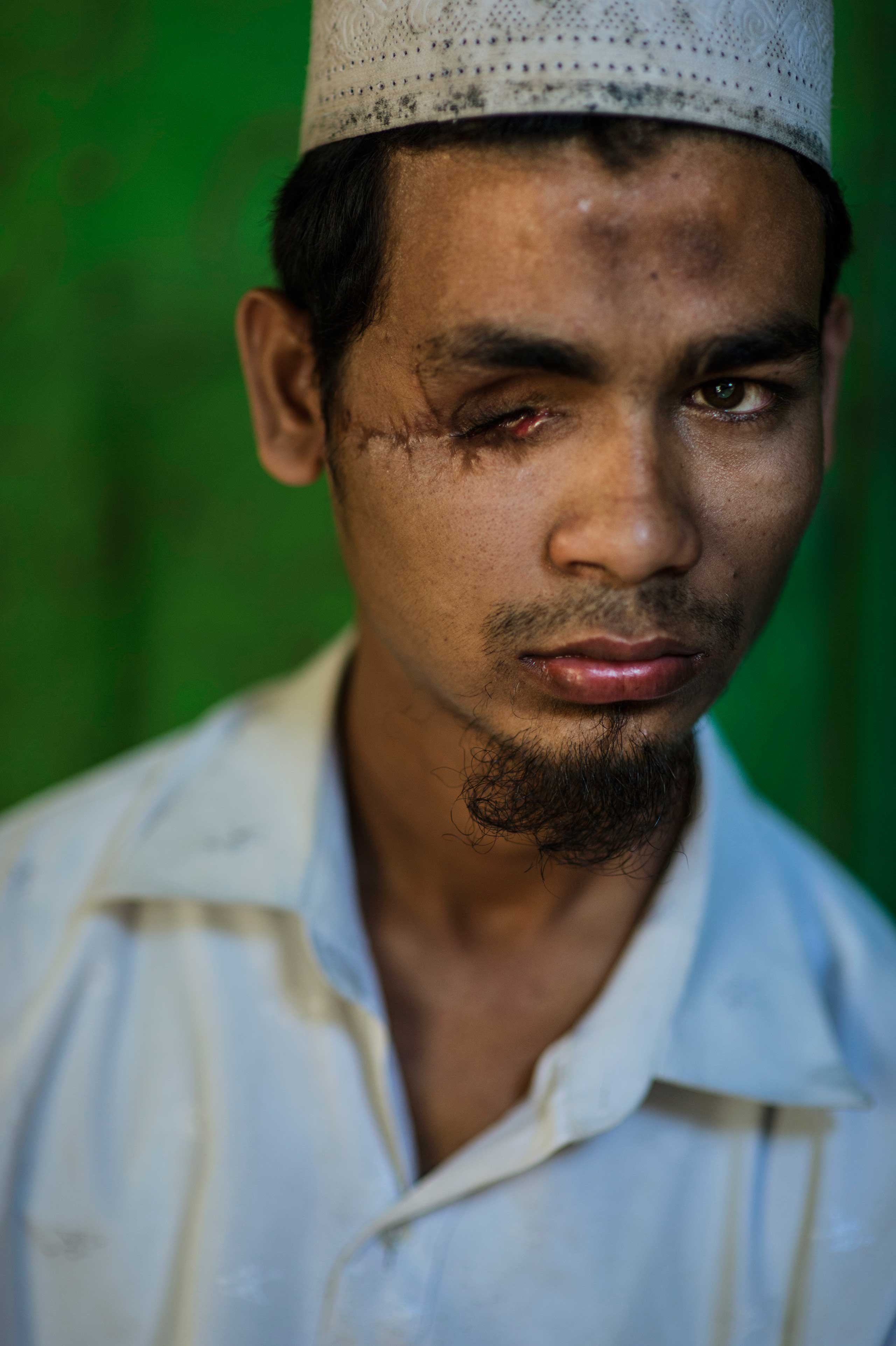 """Kyaw Kyaw, 22, from Kyaukpyu: he is from a village about 60-70 miles away from the Thay Chaung IDP camp. During the second round of violence in Oct. 2012, Kyaw Kyaw left the mosque at about 7:30pm on Oct. 24 and the Rakhine came to their village, and the villagers tried to stop them.    They destroyed the mosque. In front of him, one of the villagers was hit by police bullets, and he pulled away from the area. When the village was hit, he pulled away from the area, and at the same time, he was also hit in the eye. Two villagers brought him to the back, and there were 4-5 people in total who had been hit by police fire.   In that moment, the villagers made an agreement with the military to transfer the injured to the hospital…. A bullet was still in his eye when he arrived at the Yangon hospital, and they did surgery on him. He was there about 45 days, and sent back to Sittwe.   """"I am not angry with the situation: I am always trying to be comfortable with people according to their religious decision. [This happened] because they wanted to cause problems for islam in general. Right now, we are having a lot of difficulties,"""" he says.   """"My father can't work; we can't get money, and there are so many problems. We are suffering from many things right now. I used to have many friends—females, males—now I am the only one left, because anyone who has any money, left. Now I don't have any friends. Yes, I feel very bad I lost my eye.  I feel extremely sad. There are times when people talk down to me, but I am a man, and I am capable. My mother is getting old now, and I have to think about how to find a livelihood for her myself. If you want to think about how difficult it is for me, just imagine life without sight. Just close your eyes, and imagine. Of course I am frightened. I want to live in peace."""""""
