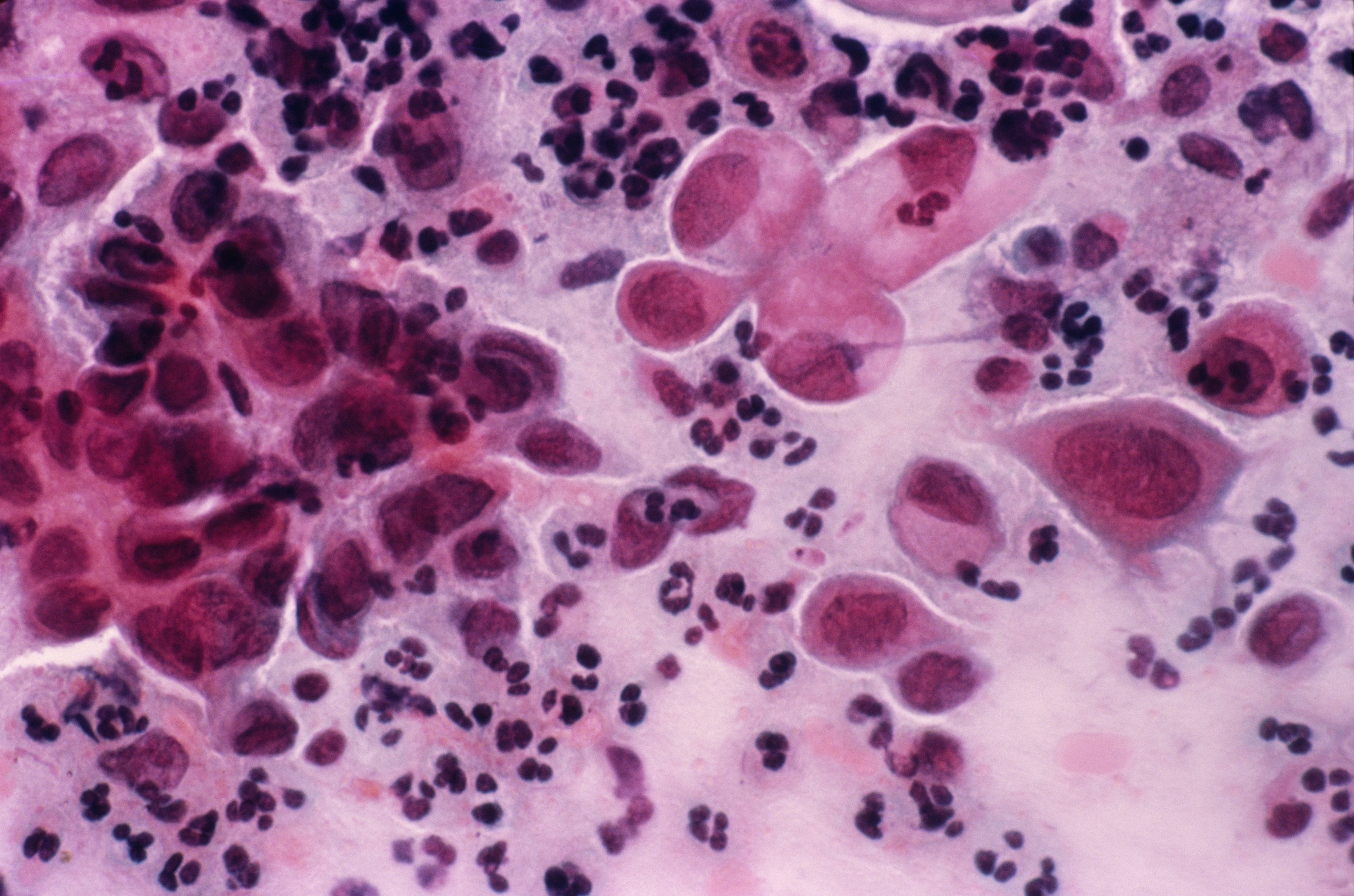 Light micrograph of a vaginal smear showing cancer cells (large pink cells with purple nuclei).