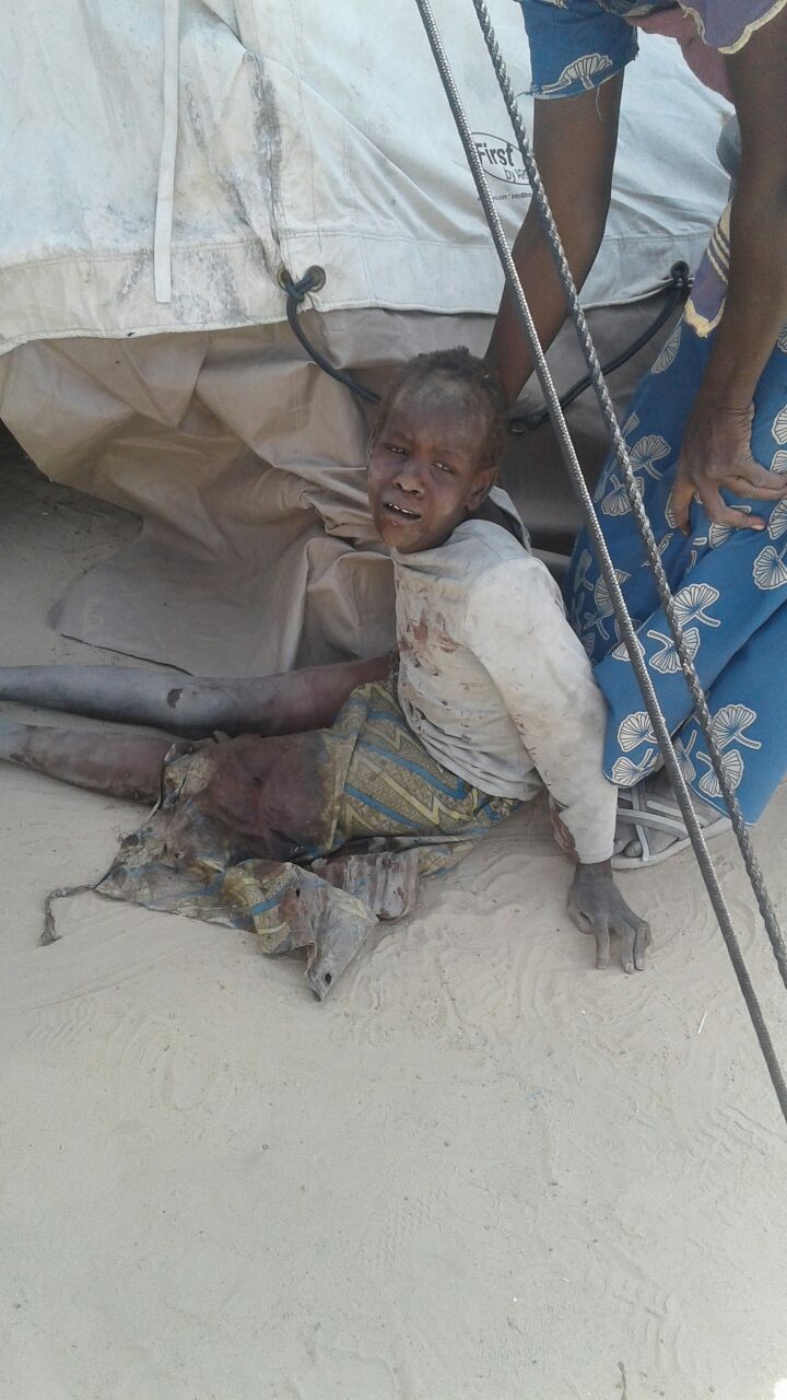 An injured children after an attack on a camp for internally displaced people in Rann, Nigeria, on Jan. 17.