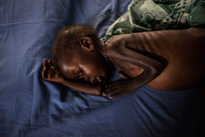 A severely malnourished child from Leer receives treatment at the inpatient ward run by International Medical Corps at the Protection of Civilians site in Juba, March 22, 2016.