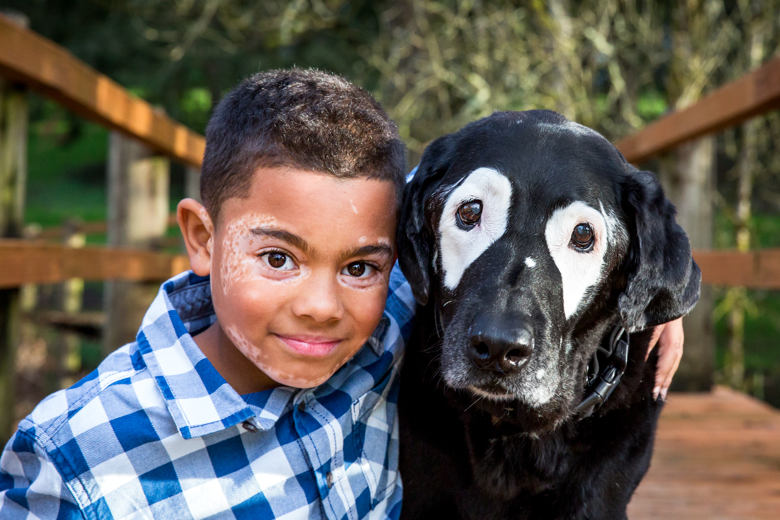 Carter Blanchard, of Arkansas, is pictured here with his new friend Rowdy. Both were diagnosed with Vitiligo, a rare skin disorder.
