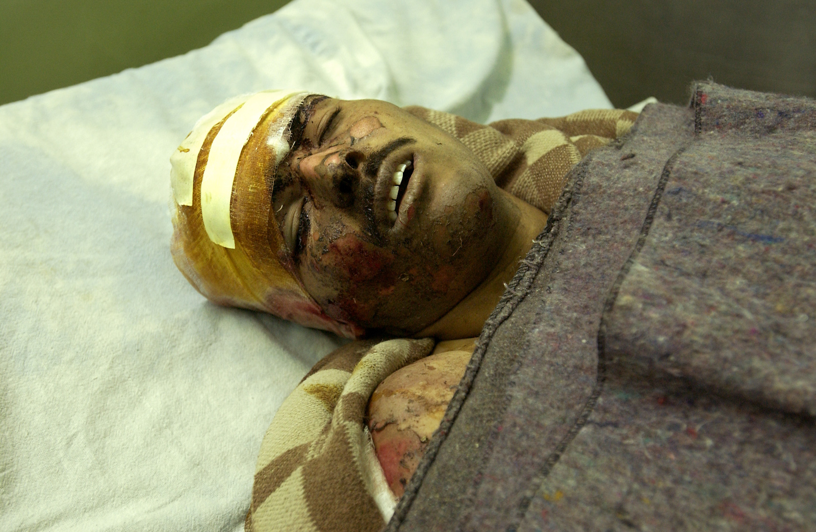 A wounded Iraqi man in a Baghdad hospital after airstrikes in the days following the U.S. bombing of Baghdad, April 4, 2003.