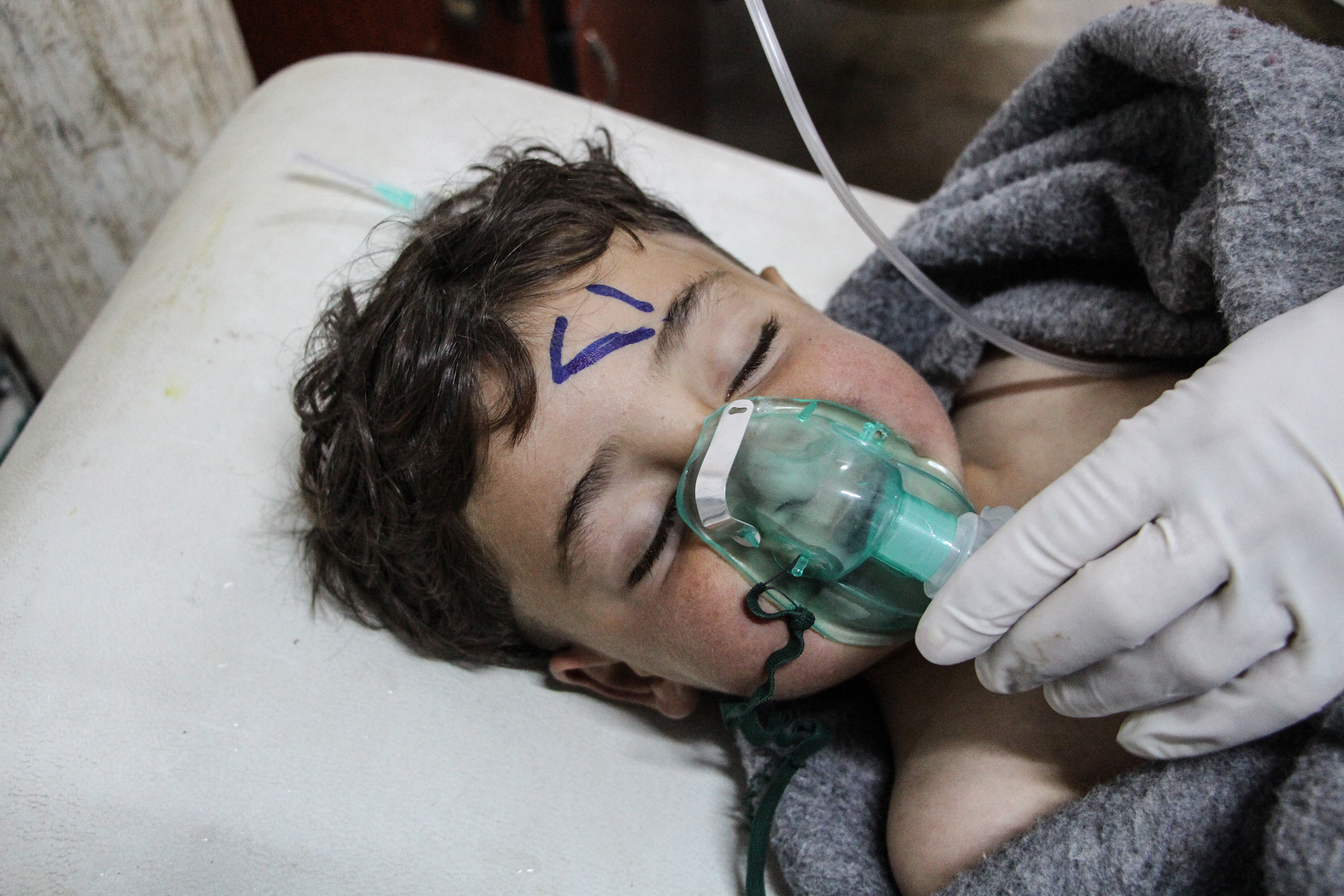 A child receives care after an attack at a field hospital in Saraqib, Idlib province, Syria, on April 4, 2017.
