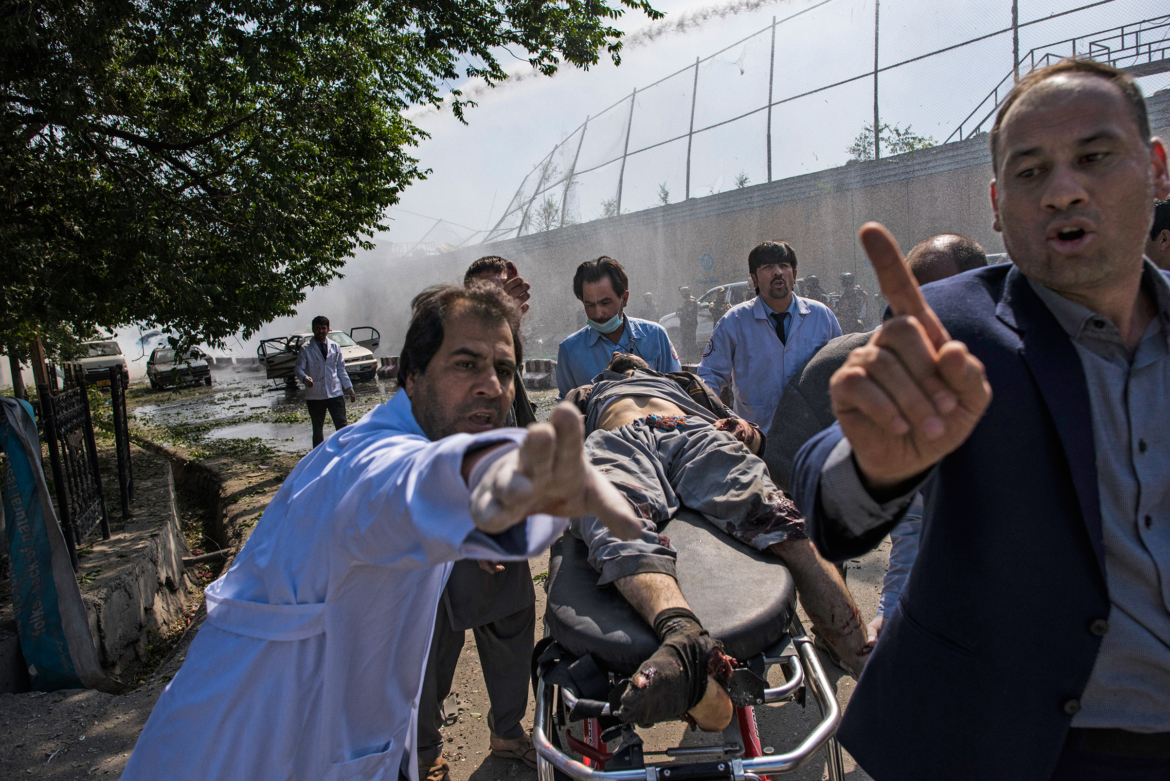 An injured man is carried to an ambulance after the May 31 blast in Kabul that left at least 90 dead
