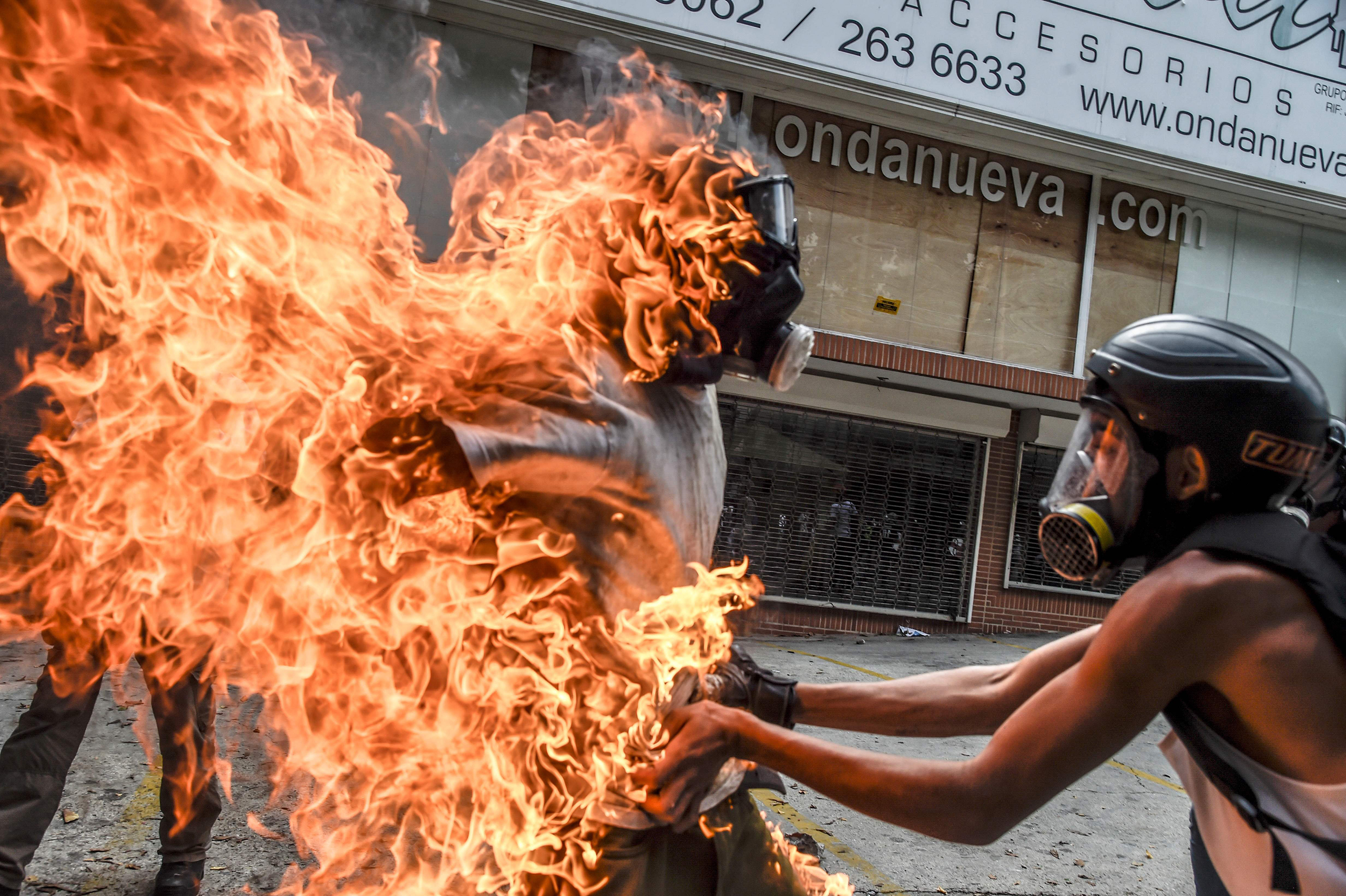A demonstrator lifts the shirt off of a man who was accidentally set ablaze in Caracas on May 3, 2017.