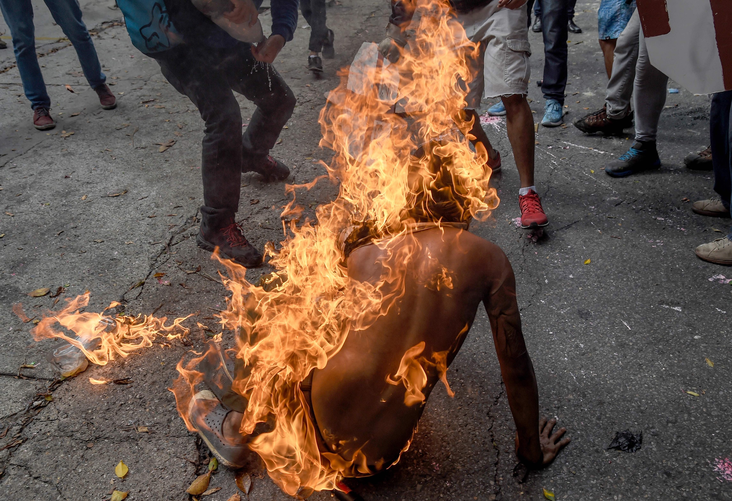 The man falls to the ground as others rush to his aid in Caracas on May 3, 2017.