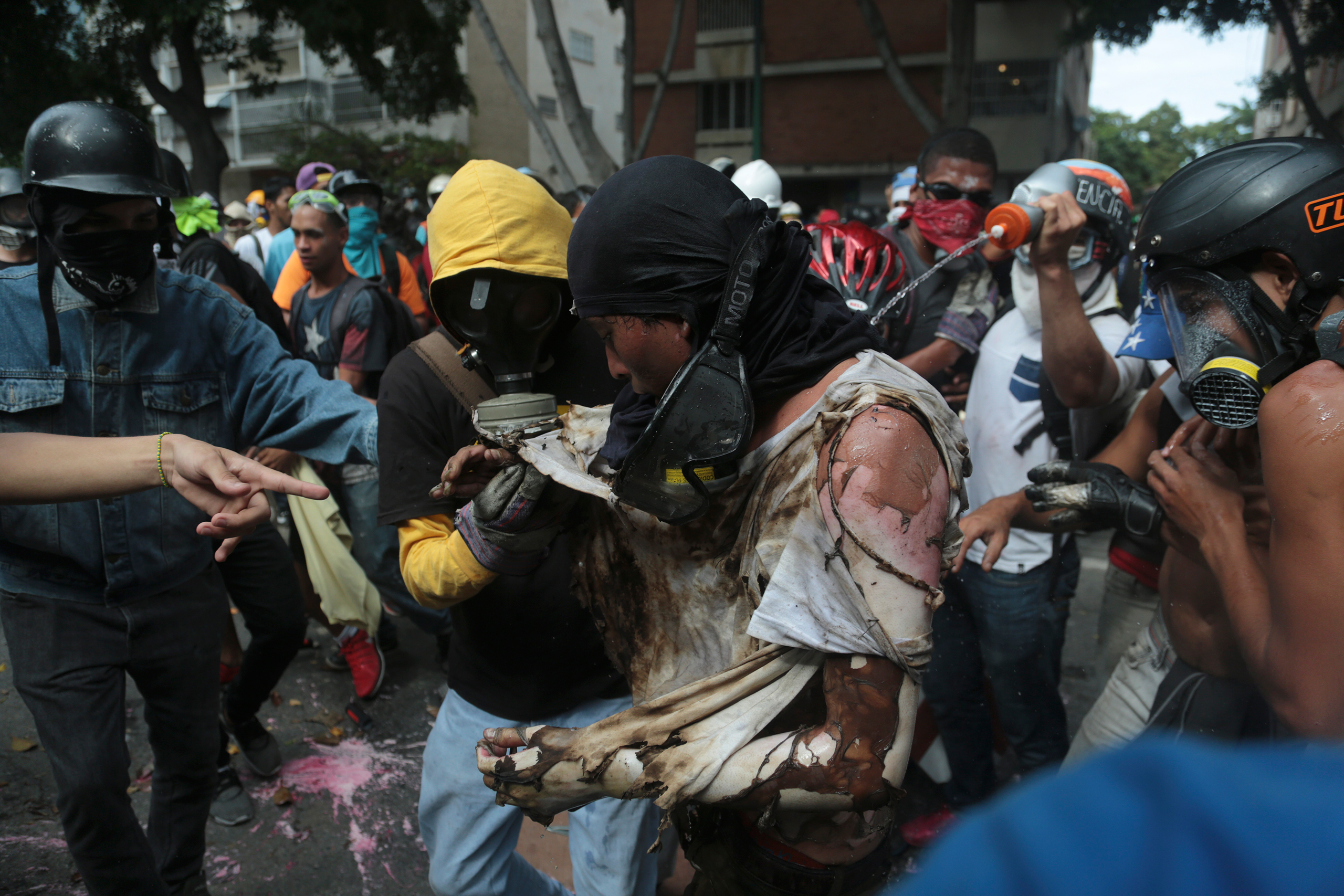 The man is aided by fellow protesters after he was burnt during a clash.