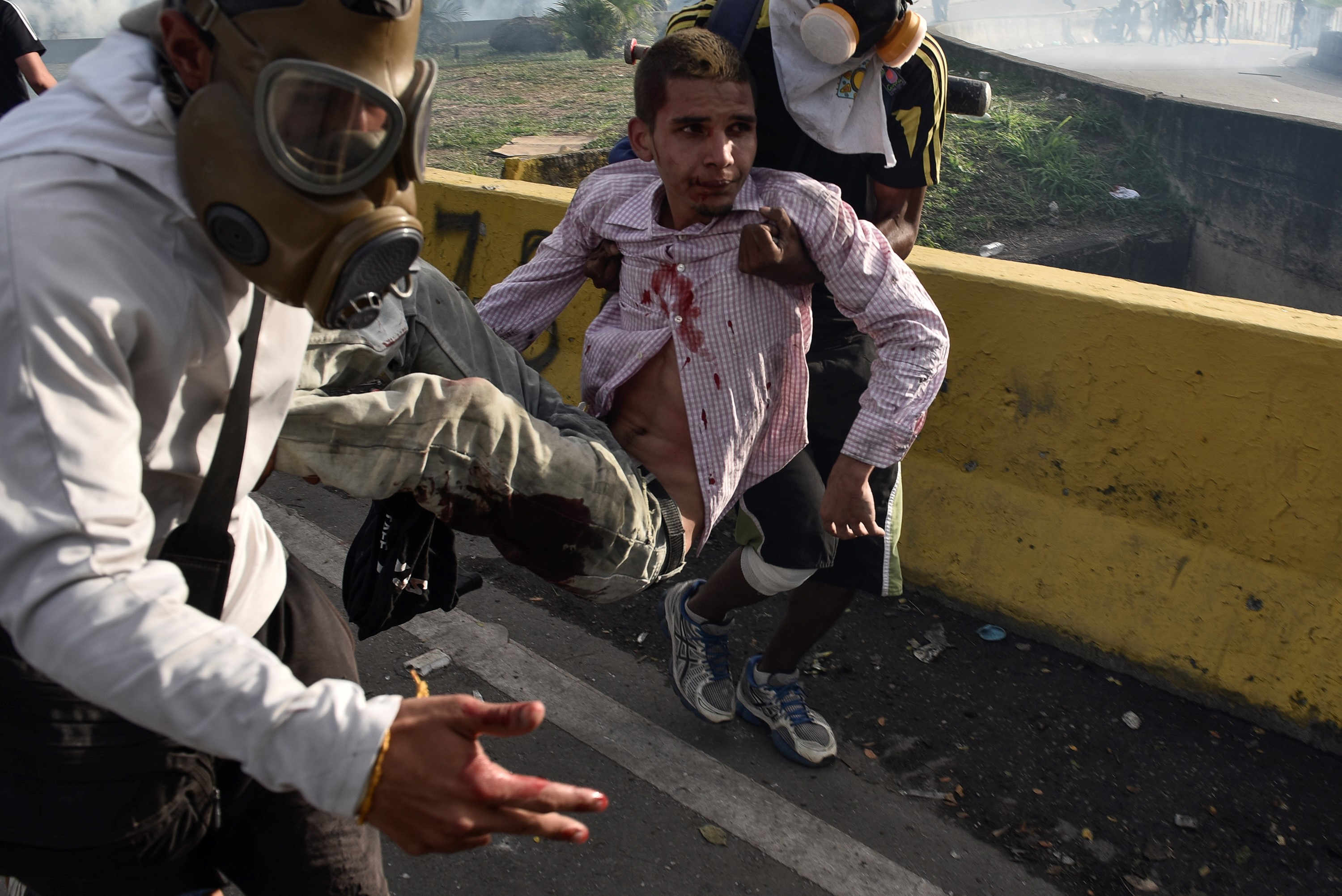 Demonstrators carry an injured protestor during a demonstration against the government of Nicolas Maduro in Caracas on May 31, 2017.