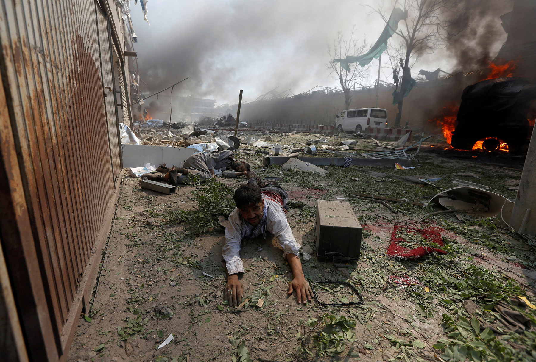 A wounded man lies on the ground after a massive blast in Kabul on May 31, 2017.