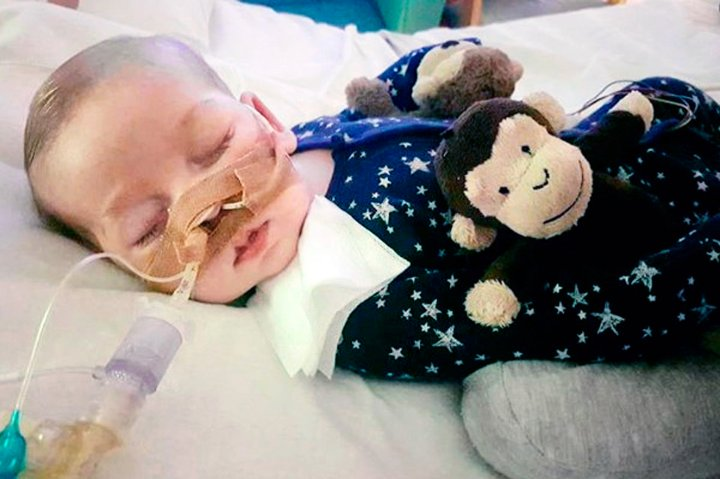 Charlie Gard's parents are fighting doctors for the right to treat him with an experimental therapy