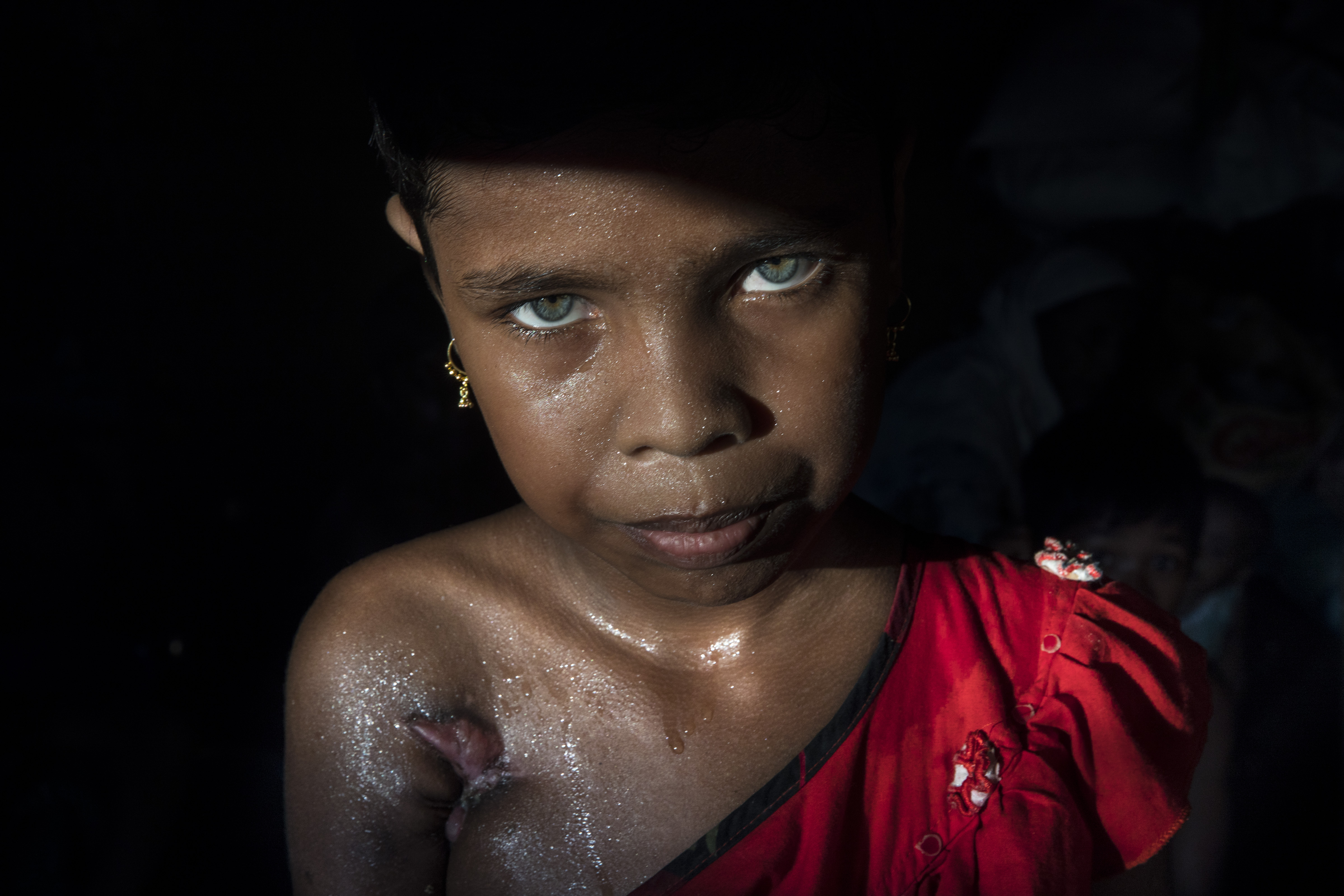 Eleven-year-old Rohingya Azida Begum, shot twice under her arm and her leg by Burmese soldiers, in Palongkhali, Bangladesh on Oct. 10, 2017.