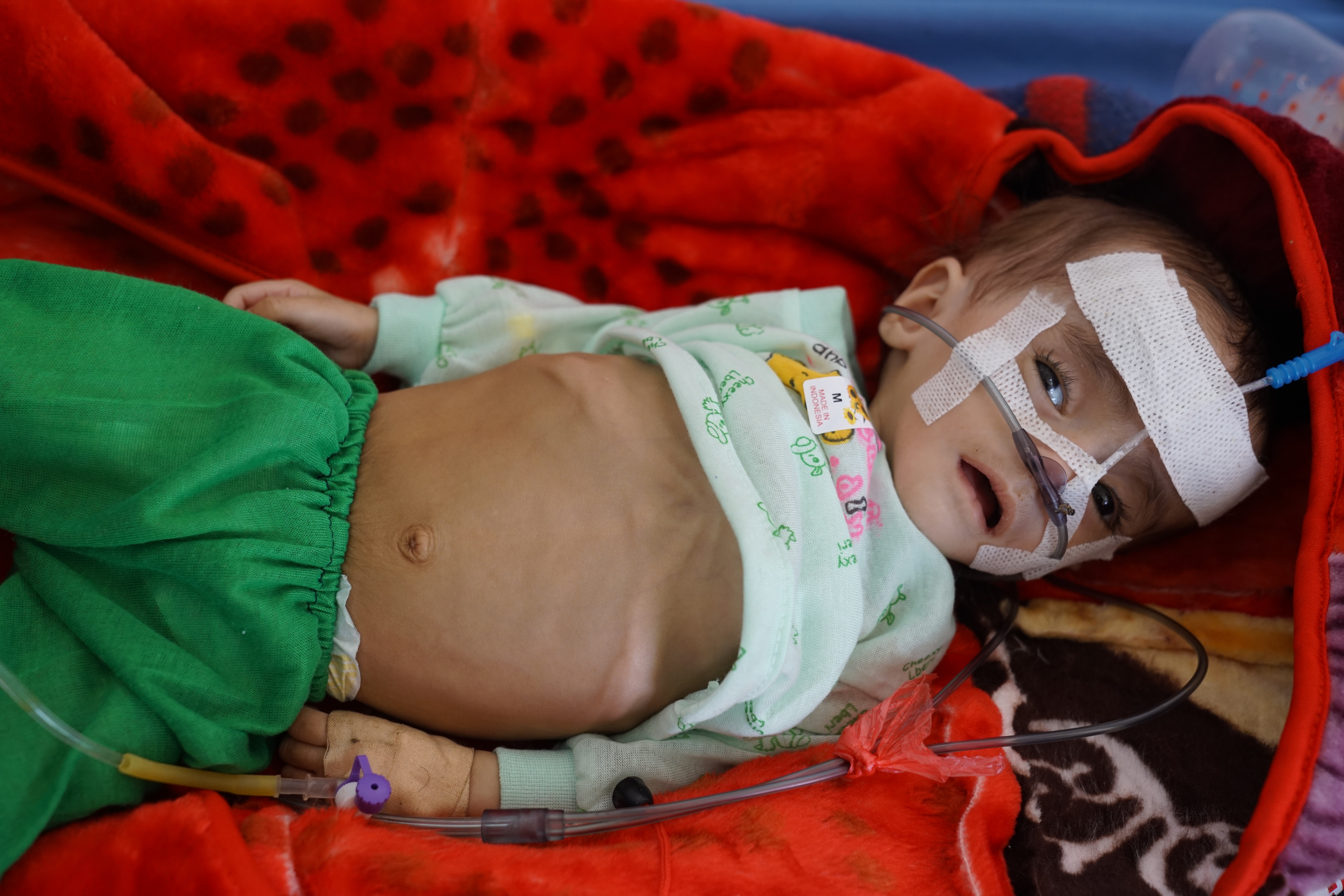 A baby lies in hospital receiving treatment for severe acute malnutrition in Sana'a, Yemen on April 25, 2017.