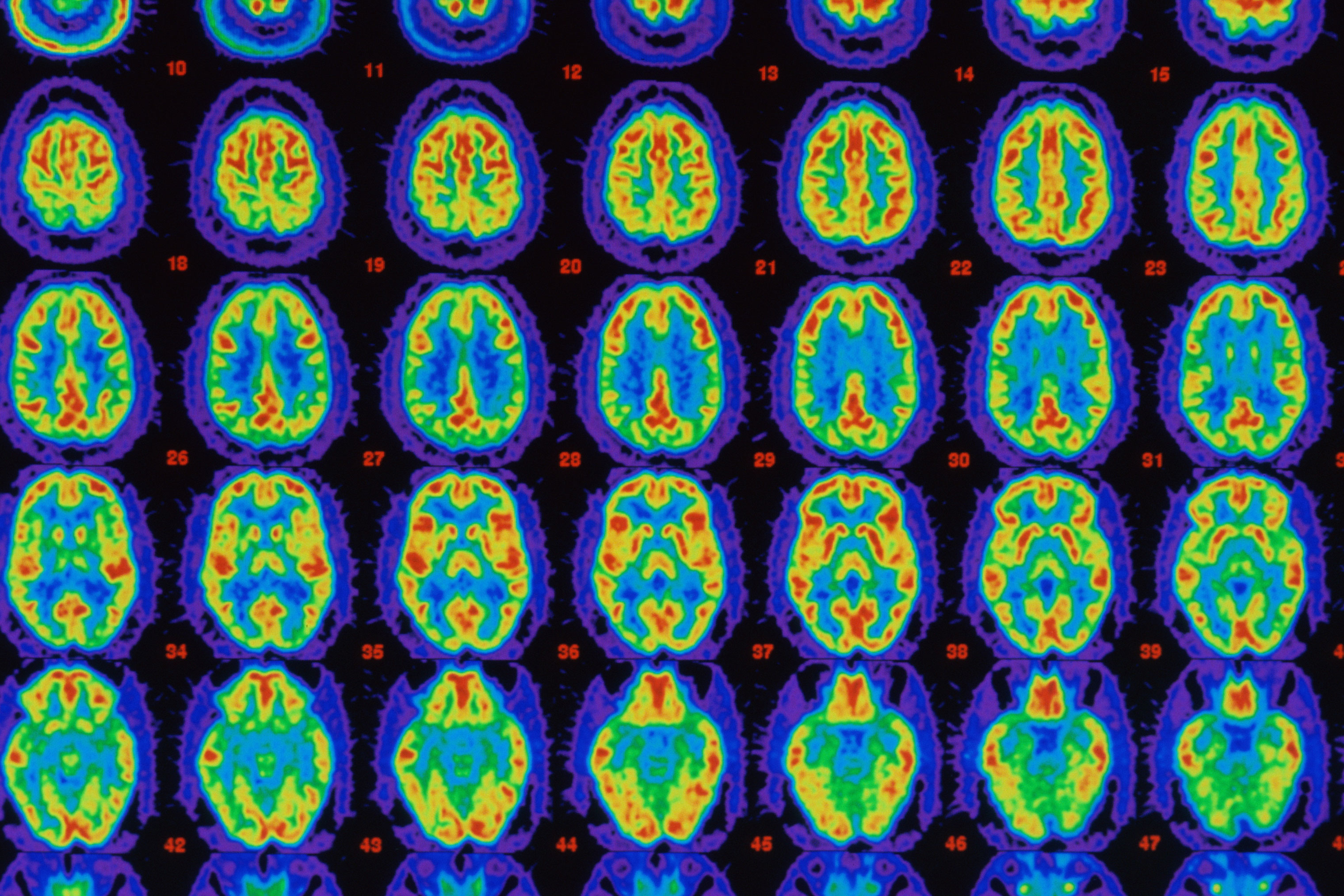 Positron Emission Tomography (PET) is used in the diagnosis and treatment of brain diseases.