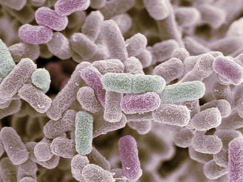 E. coli bacteria. Coloured scanning electron micrograph (SEM) of Escherichia coli bacteria.