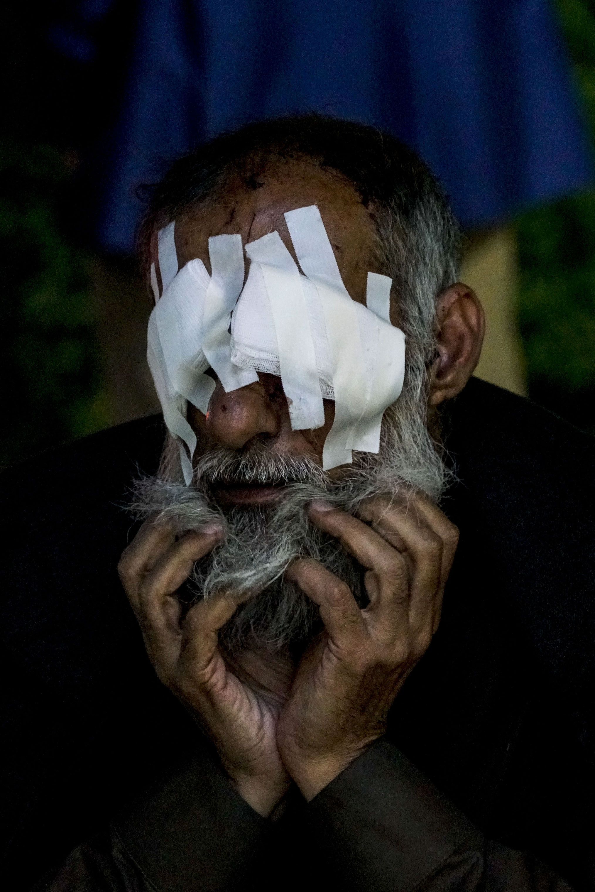 A man who was badly injured by shrapnel in Mosul waits for a taxi after being checked at the NGO hospital in Erbil in 2017.
