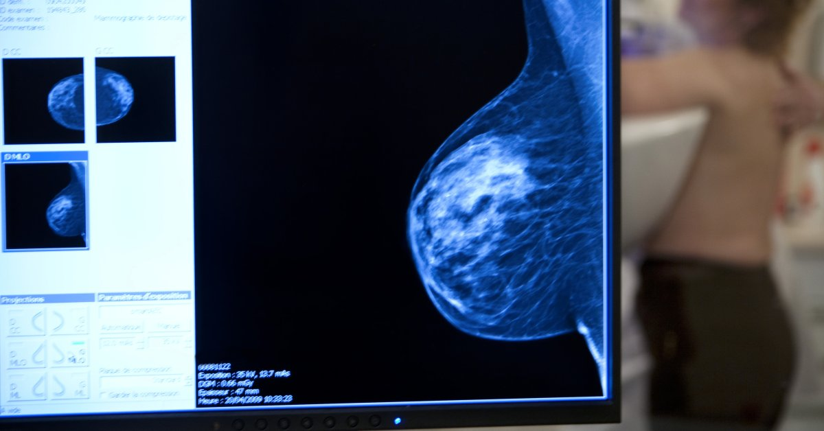 breast cancer cost of radiation