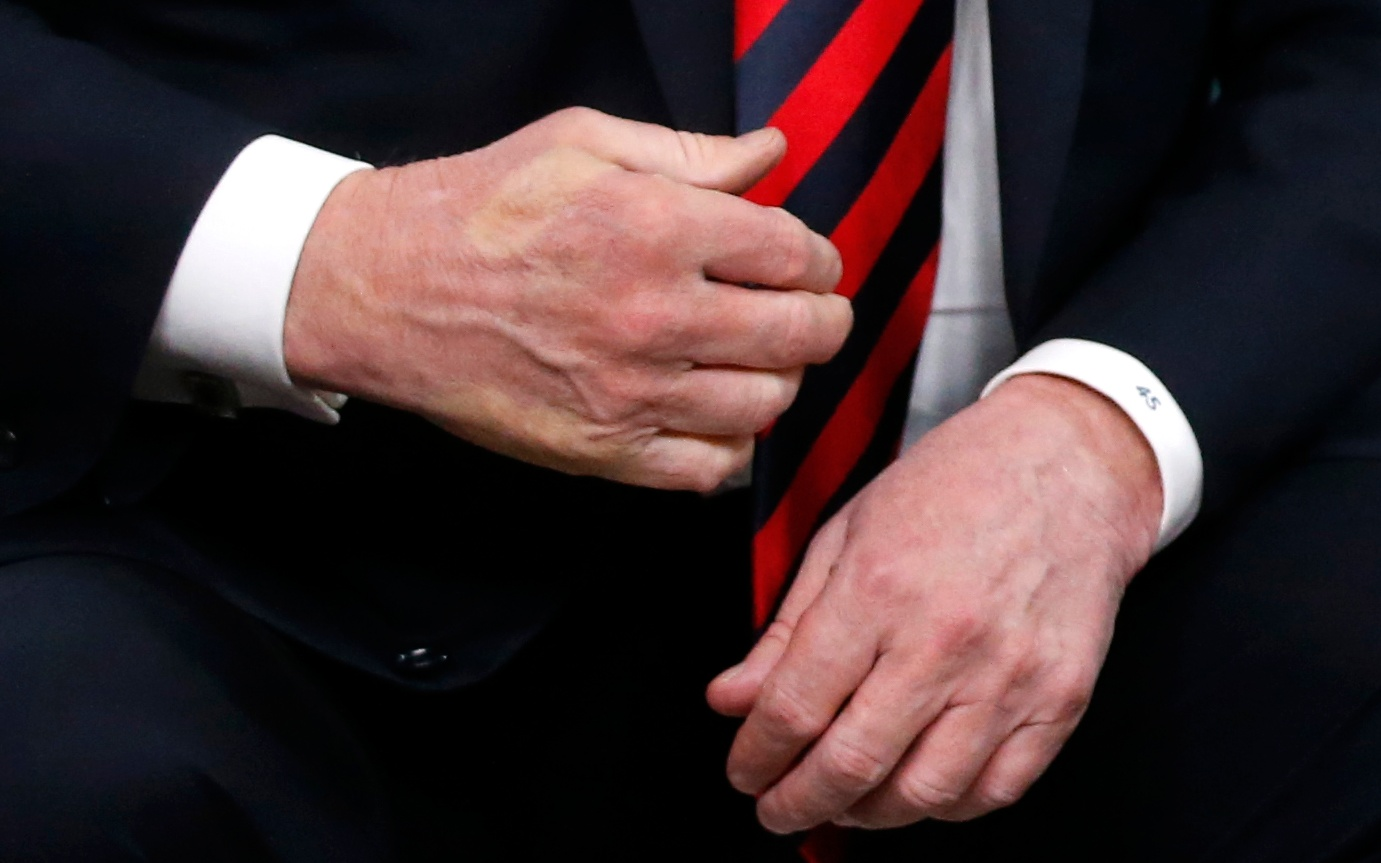 The imprint of French President Emmanuel Macron's thumb can be seen across the back of President Trump's hand after a handshake during a bilateral meeting at the G7 Summit in Canada on June 8, 2018.
