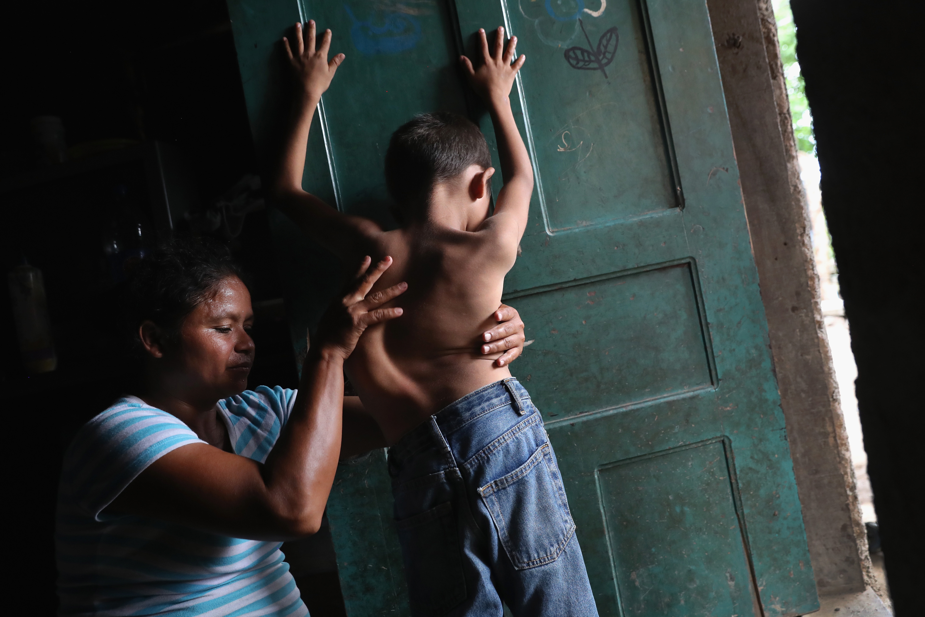 Sonia Morales massages the back of her son Jose Issac Morales, 11, at the door of their one-room home in San Pedro Sula, Honduras on Aug. 20, 2017. The mother of three said that her son's spinal deformation began at age four, but has never been able to afford the $6,000 surgery to correct his spinal condition. The boy's father, Issac Morales, 30, said he tried to immigrate to the U.S. in 2016 to work and send money home but was picked up by U.S. Border Patrol officers in the Arizona desert and deported back to Honduras.