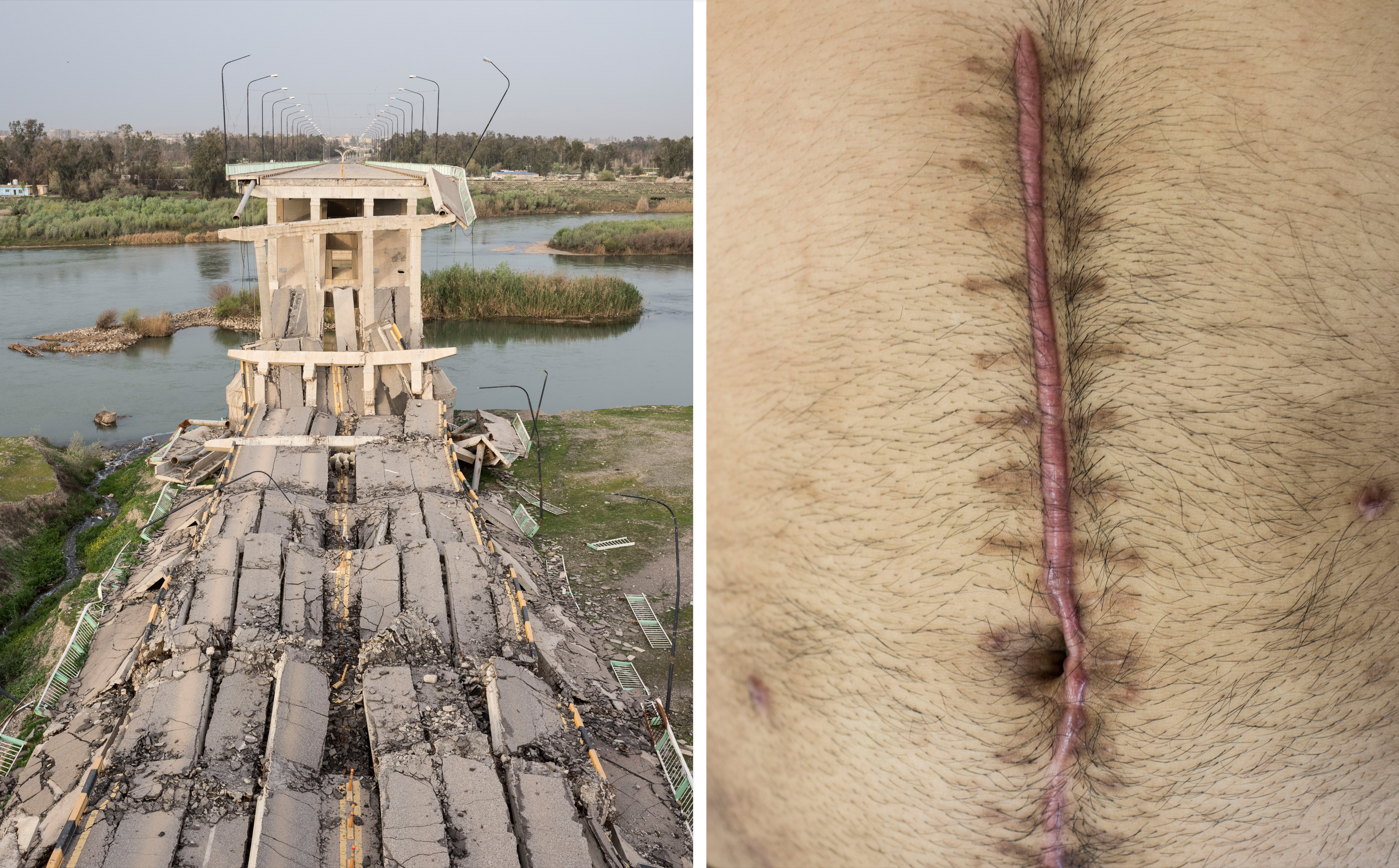 A destroyed bridge between the eastern and western sections of Mosul in April; a scar from a surgery to remove shrapnel from a car bomb at a Doctors Without Borders clinic in Baghdad in April.