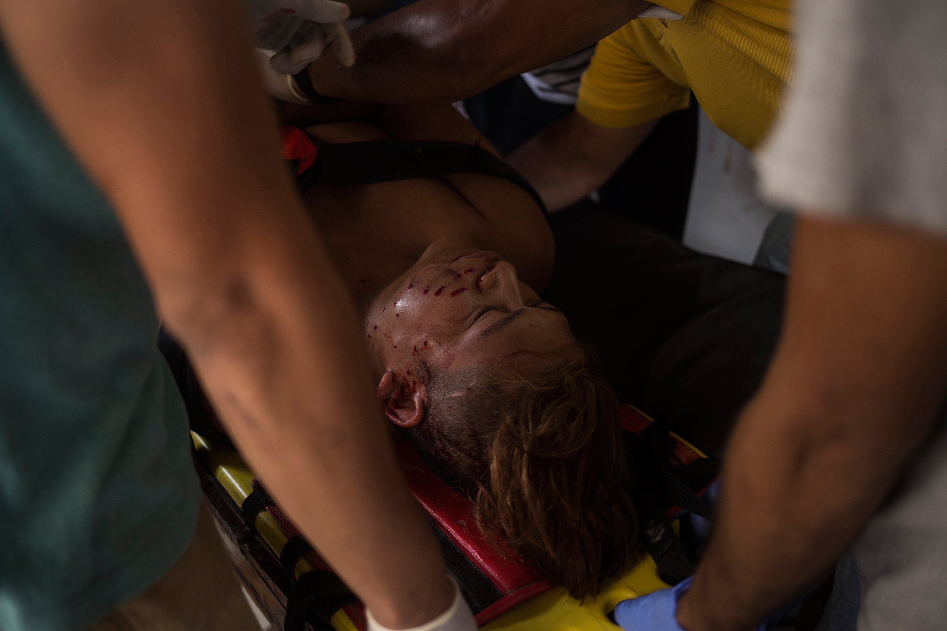 A demonstrator who was injured during a clash with police in Masaya on June 2.