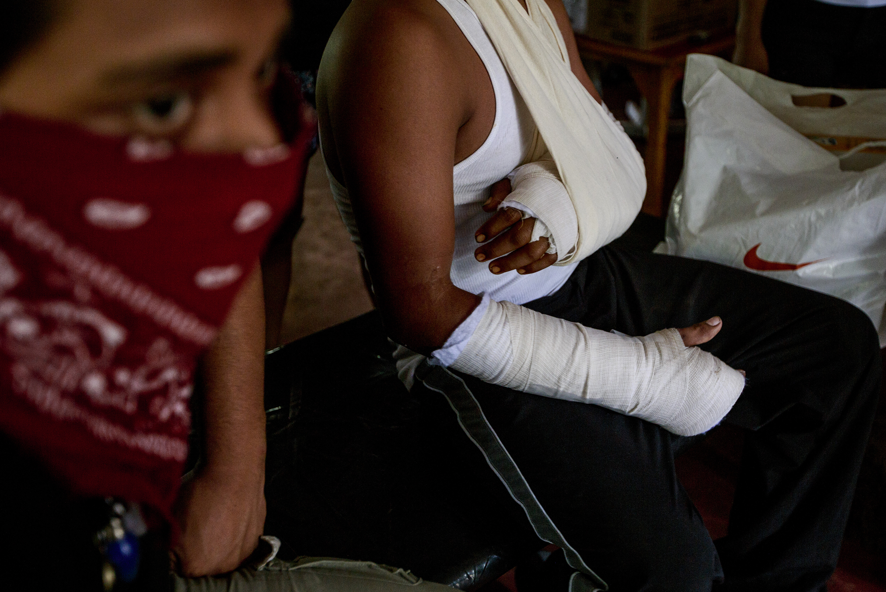 A student who was shot in both arms, during a police attack on the National Autonomous University of Managua, on June 27.