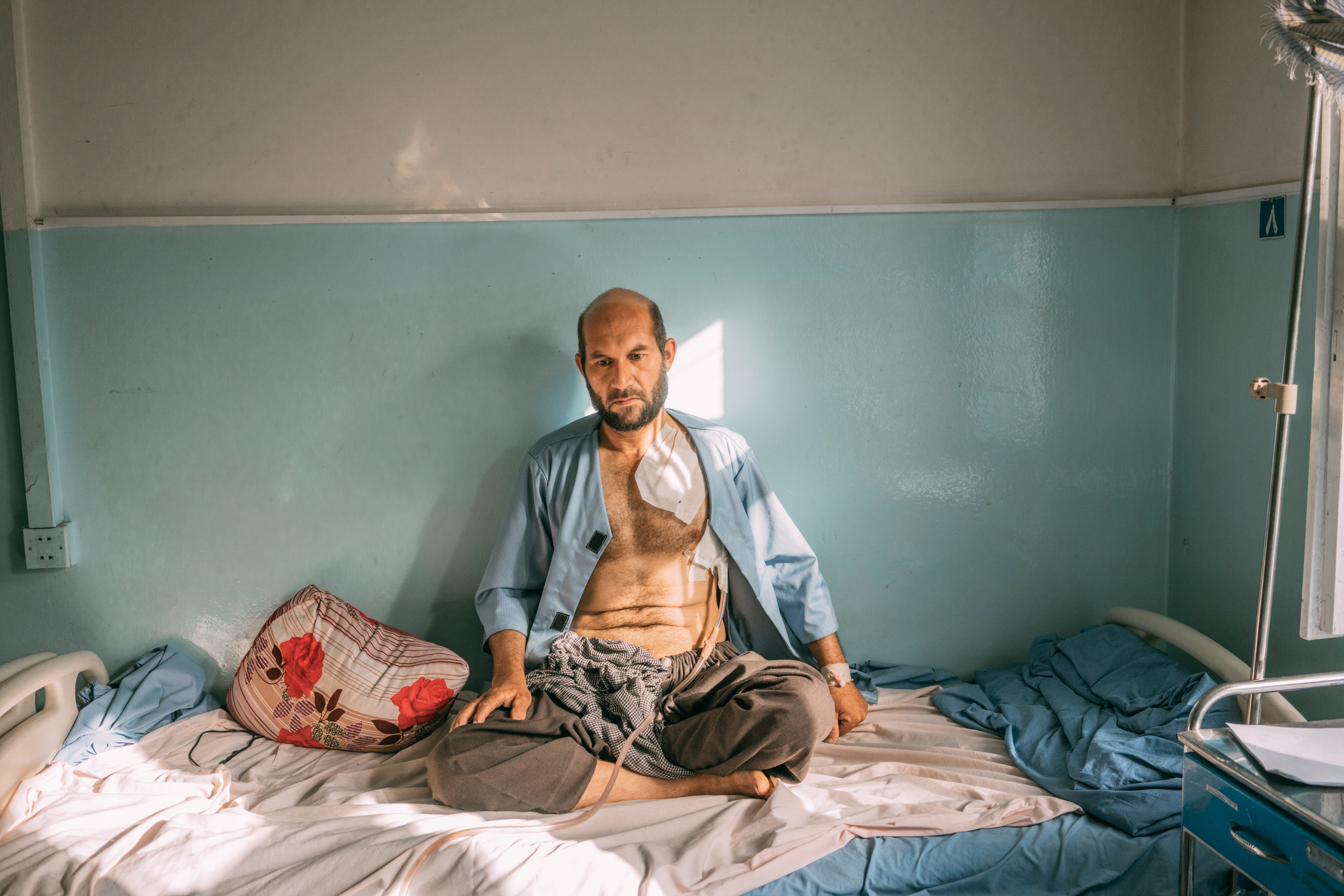 Nakibullah Salwary, 35, who was injured during the Taliban assault on Ghazni, sits on a hospital bed on Aug. 16.