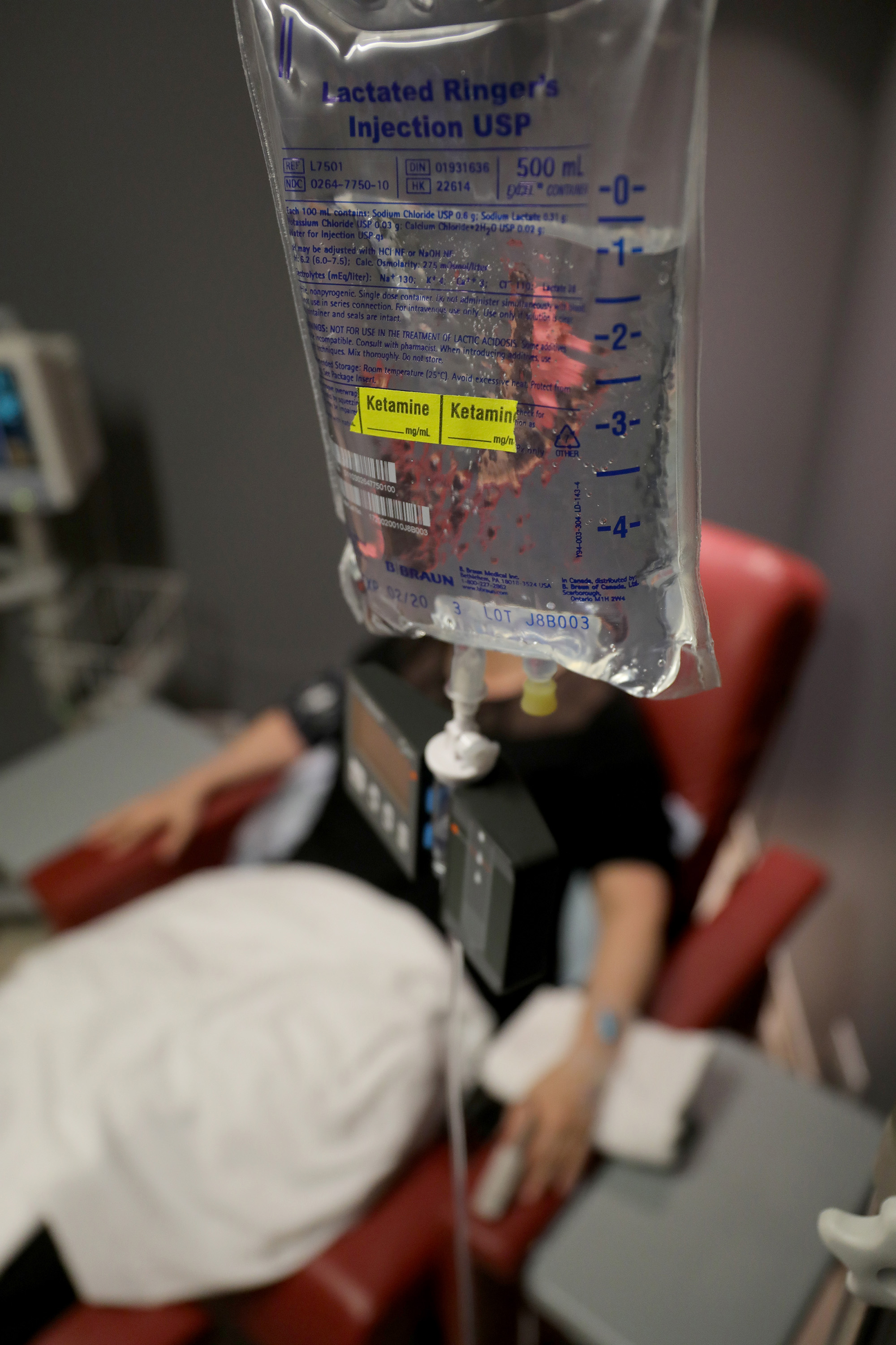A patient has Ketamine administered by way of an  IV bag for the treatment of depression at IV Solution in Chicago, Wednesday, March 21, 2018.