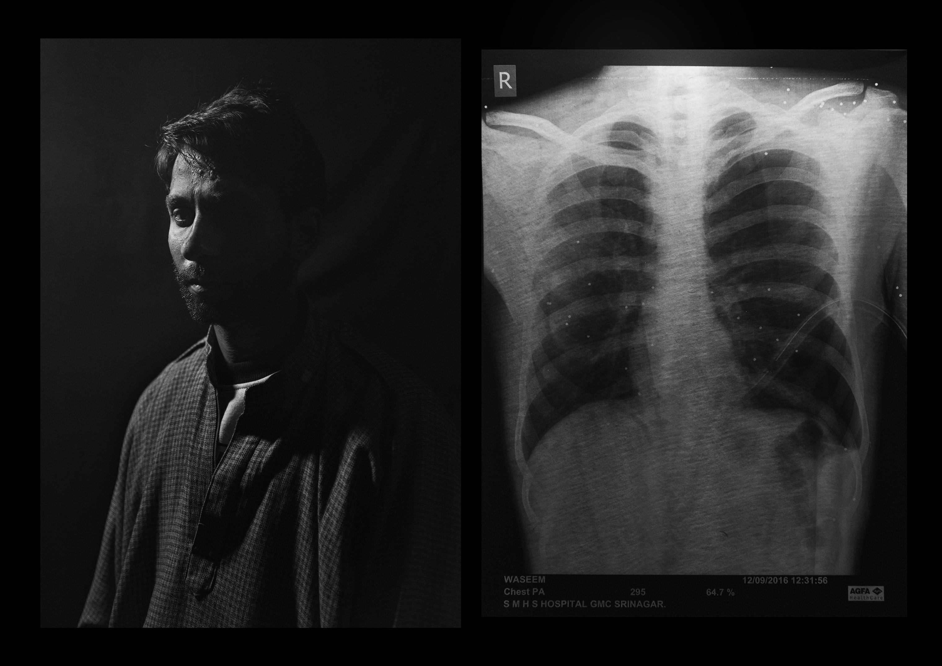 Shabkal Nazir Waseem, 25 years old, from Bijbehera. Police left him with one hundred pellets all over his upper body when they shot him on the Muslim holiday of Eid. Two lodged in each eye, leaving him almost totally blind. Four people were blinded by pellet guns in Kashmir on the day he was shot, he told Pasquarelli.