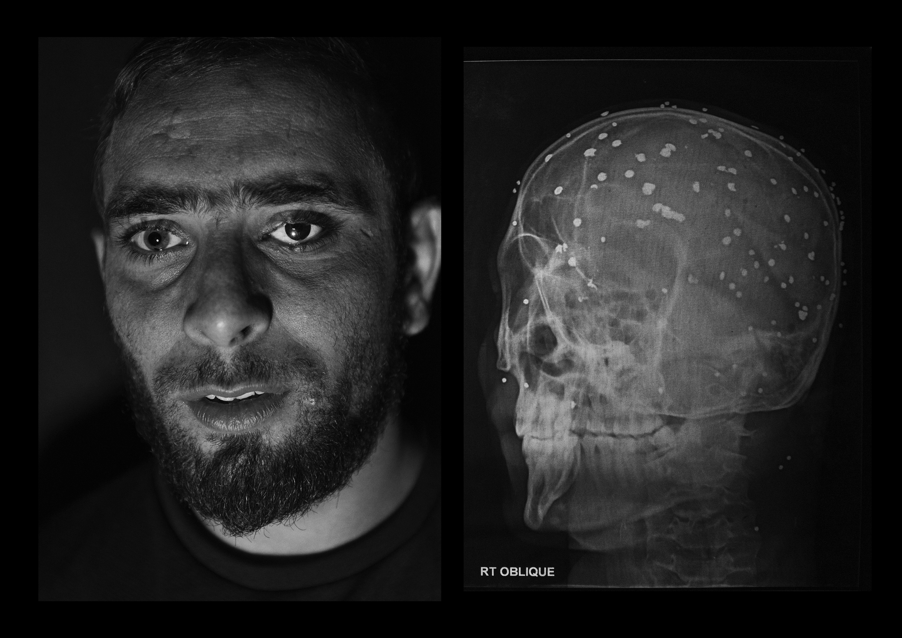 Danish Rajab Jhat, 24 years old, from Srinagar. His left eye was unsalvageable, so doctors replaced it with an artificial eyeball. He still has 90 pellets inside his body and from his right eye he can barely see shadows.