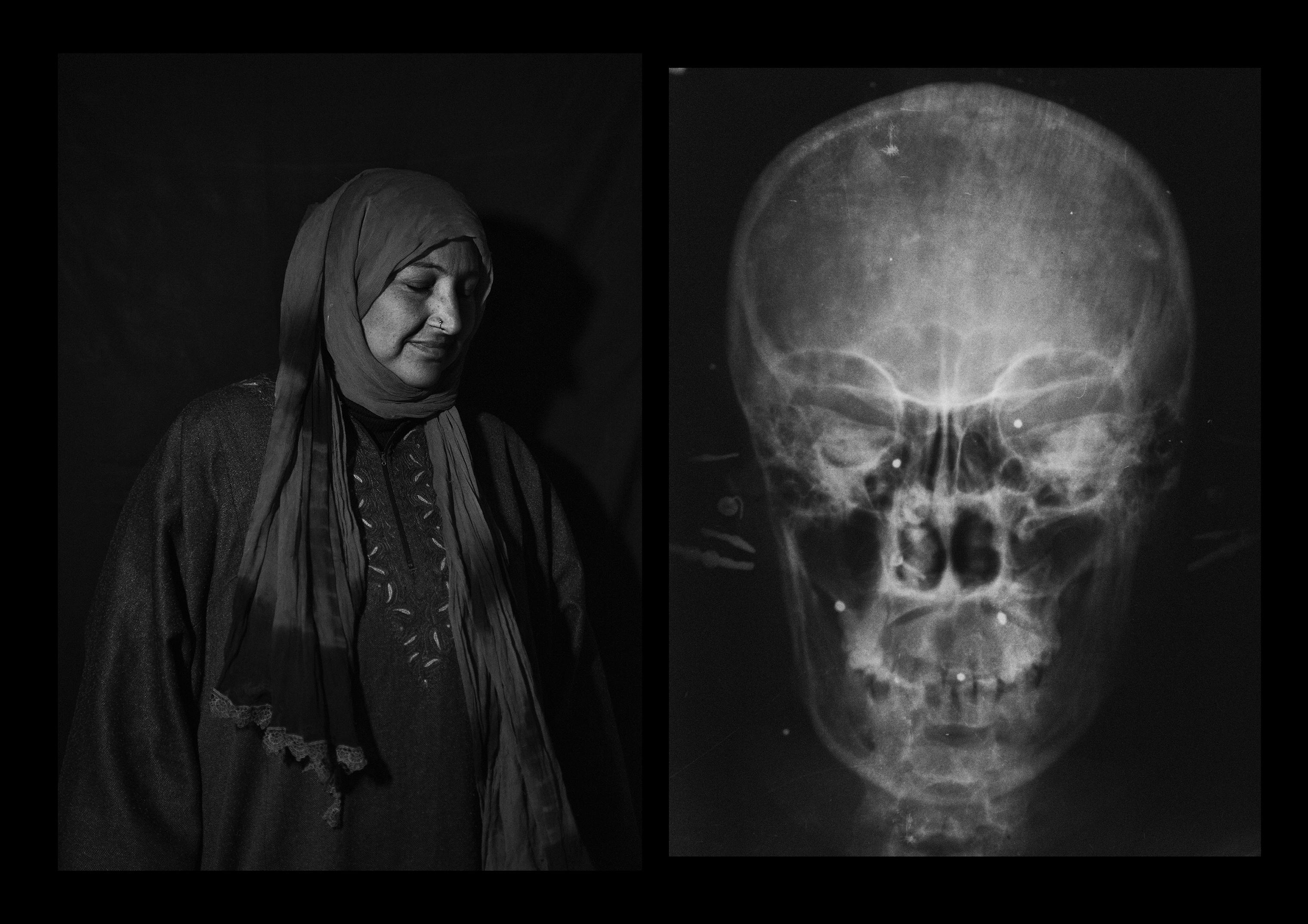 Shakeela Begum, 35 years old, from Sheeri. She was hit by dozens of pellets on her chest and face. One entered her left eye and two hit her right eye. The pellets were shot from a very short distance and traveled beyond the retina, leaving her with only 10% of her vision.