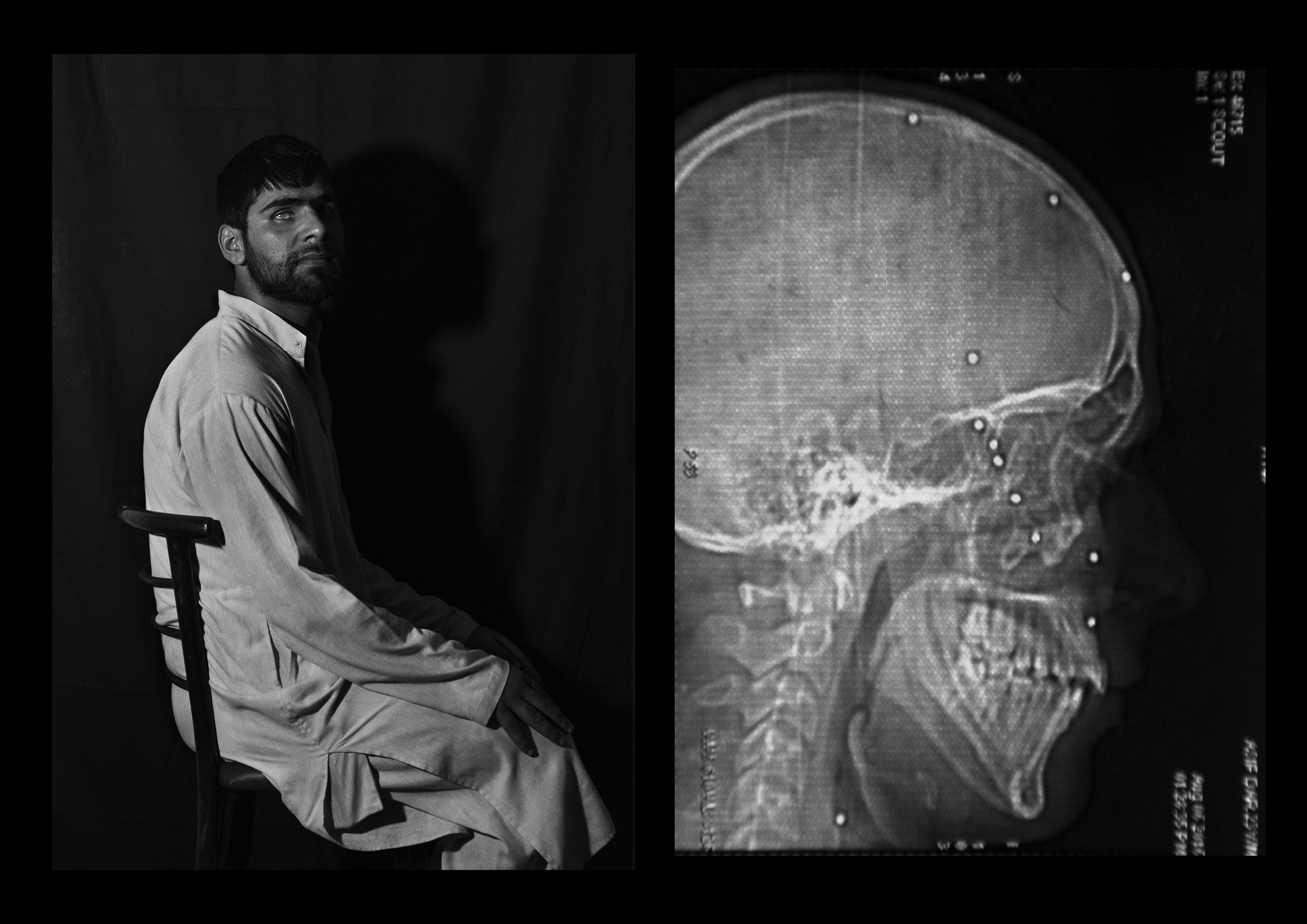 Mohammad Asif Dar, 23 years old, from Baramulla. He says he was playing cricket when he was shot in the head, shoulder and chest. Despite eight surgeries, he only has 10% of his vision left in his right eye.