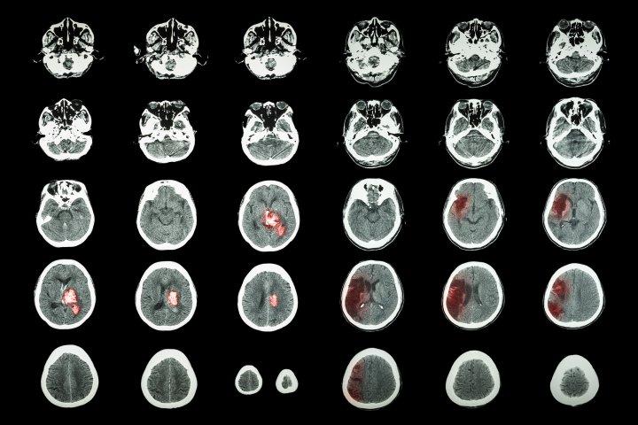 CT scan of brain Hemorrhagic Stroke and Ischemic Stroke