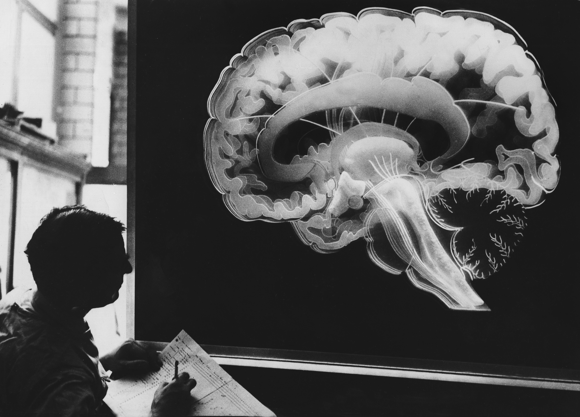 A plastic model of a human brain, Philadelphia, 1960.