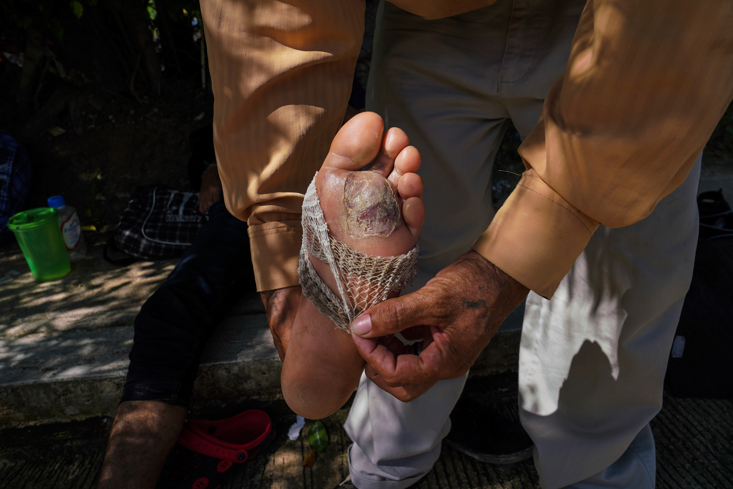 A Salvadoran migrant, and former member of MS-13, shows the blistered foot of another migrant minutes after he applied cream to it near Palenque, Chiapas, on Oct. 20.