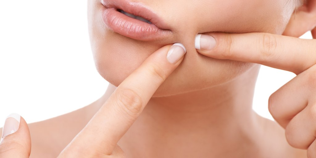 Here S Why People Are Obsessed With Popping Pimples Time